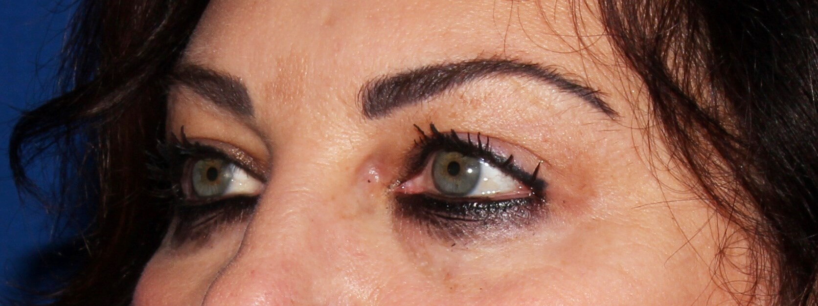Blepharoplasty Before - Left Oblique View