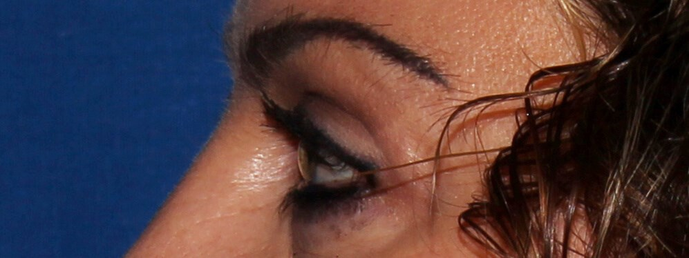 Blepharoplasty after - Left View