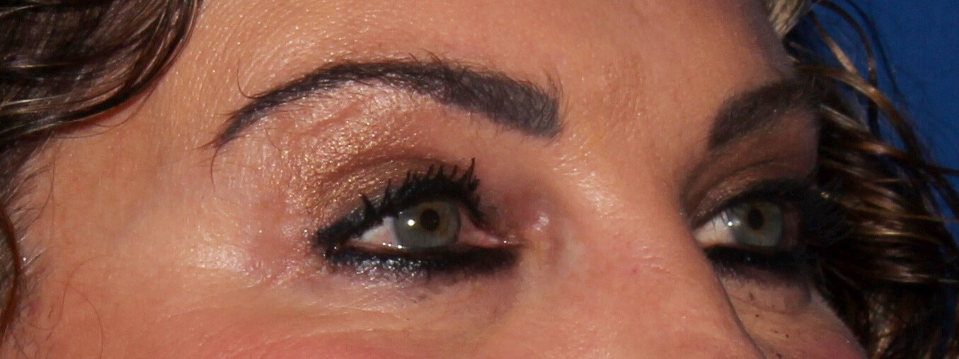 Scottsdale Blepharoplasty after - Upper Blepharoplasty