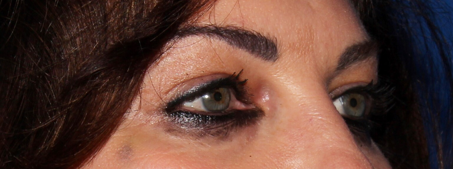 Scottsdale Blepharoplasty Before - Upper Blepharoplasty