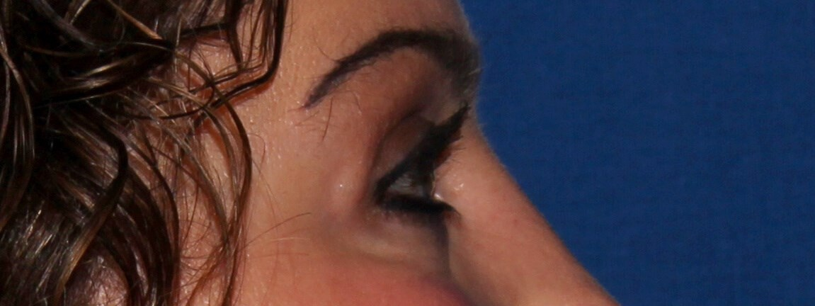 Blepharoplasty after - Right View