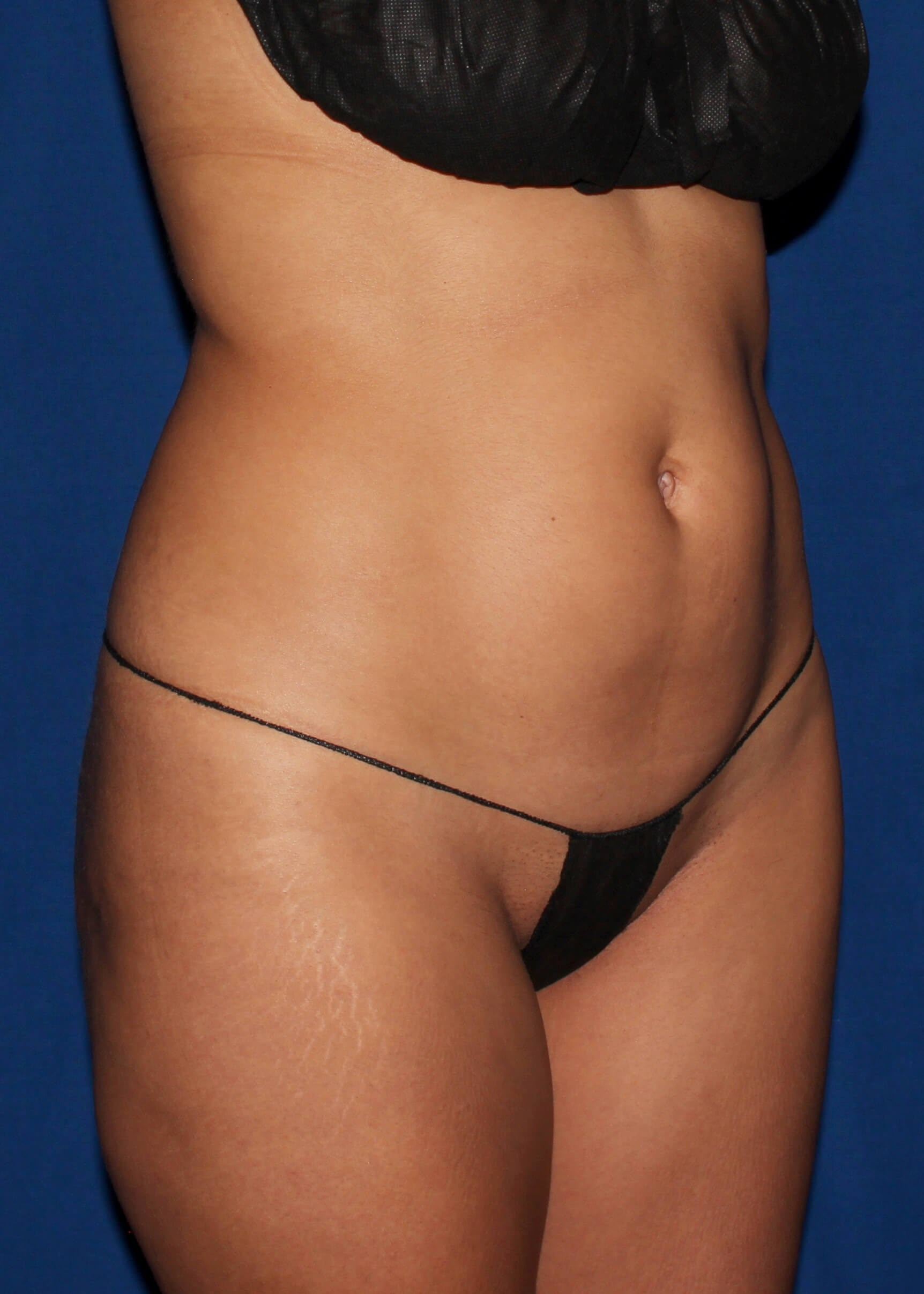 Full Torso Lipo Before Right Oblique View - Right Oblique View