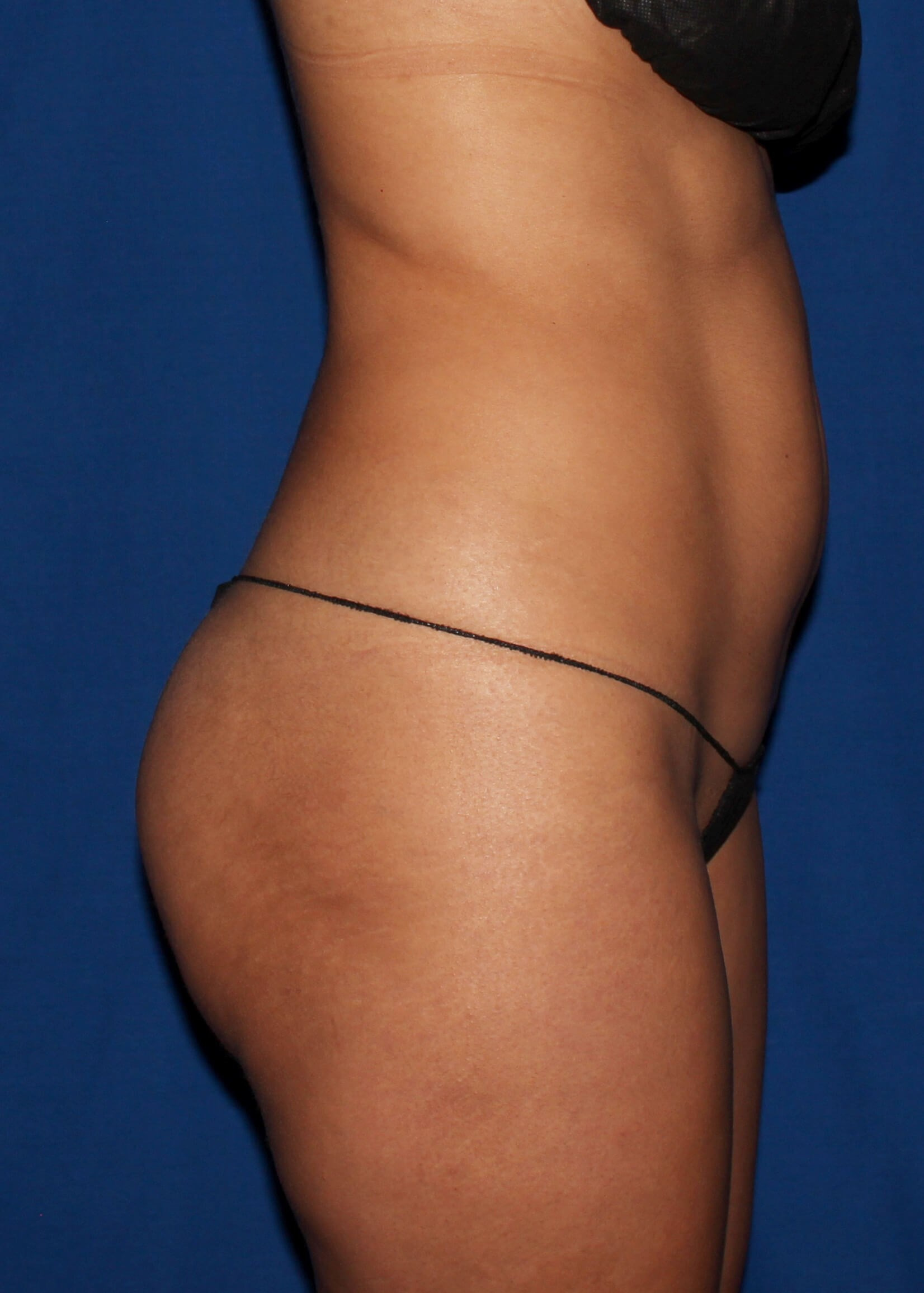 Full Torso Lipo Before Right View - Right View