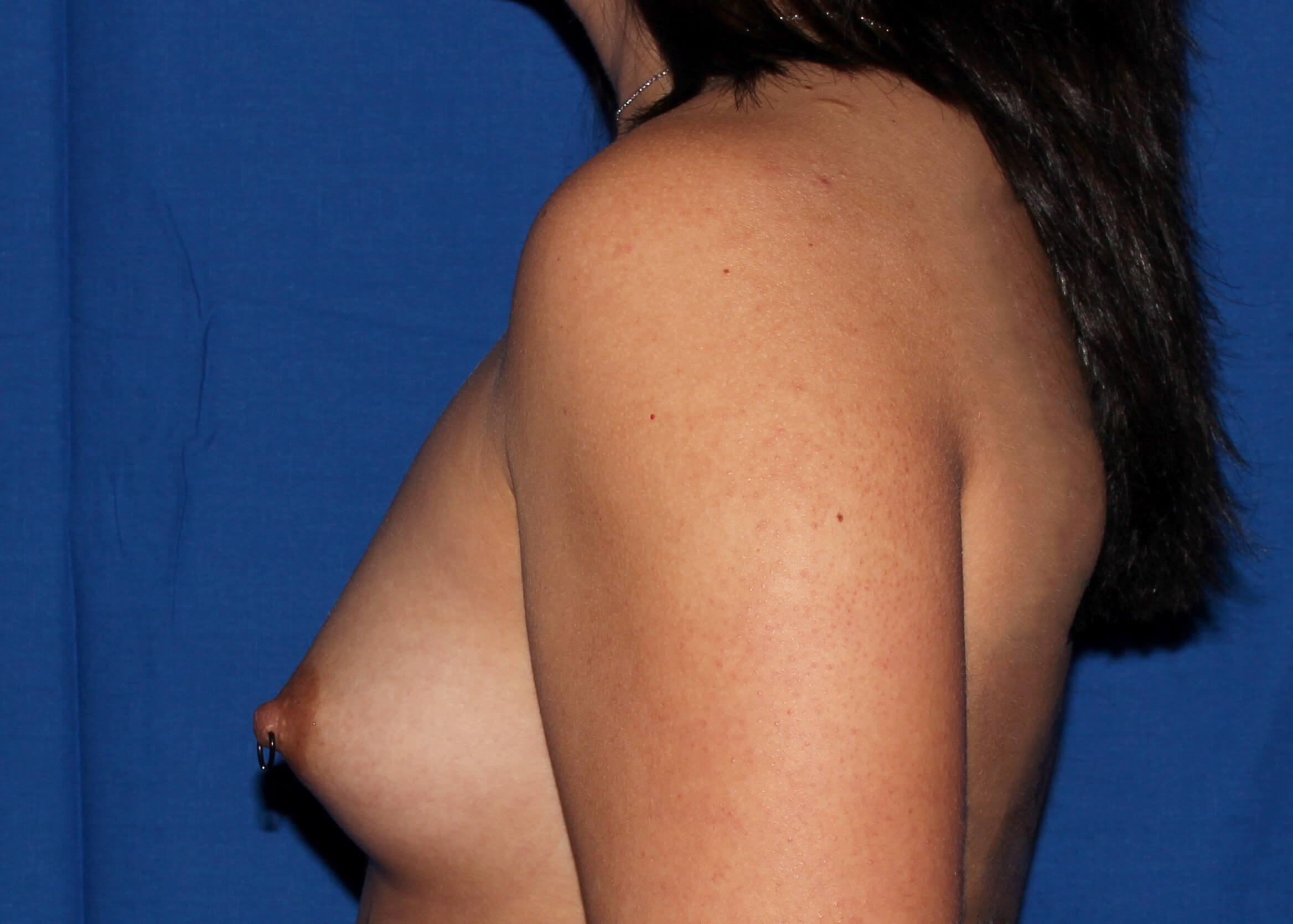 Breast Augmentation Before - Left View