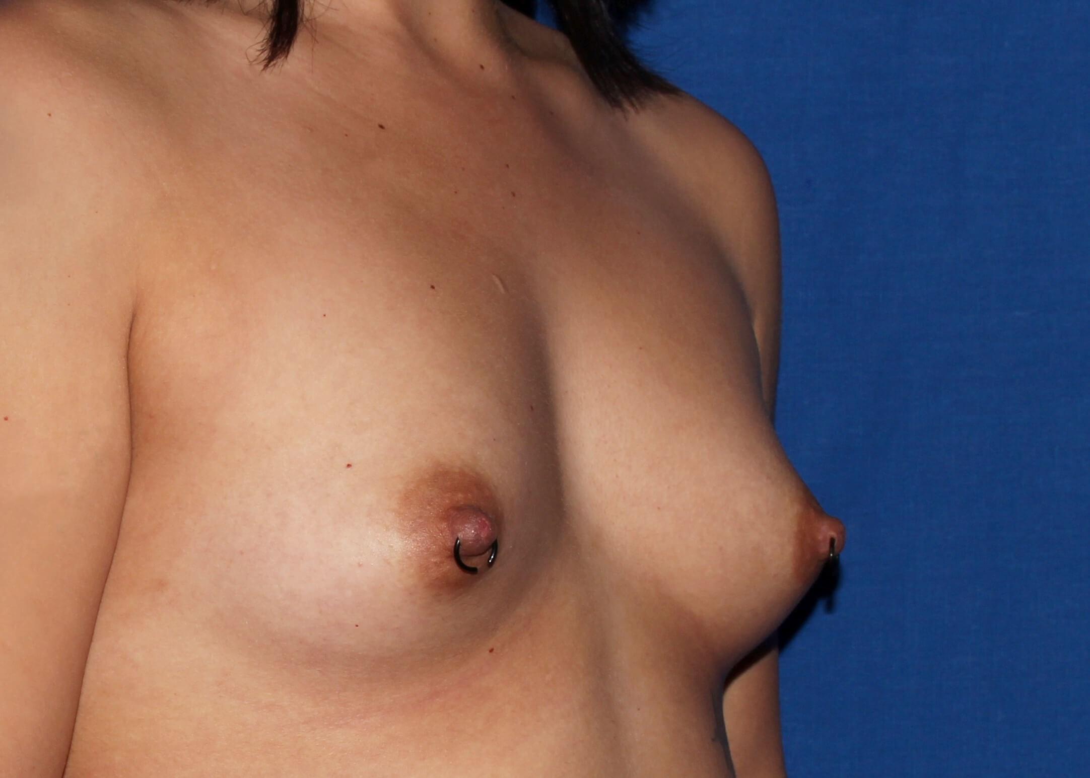 Breast Augmentation Before - Scottsdale Breast Augmentation