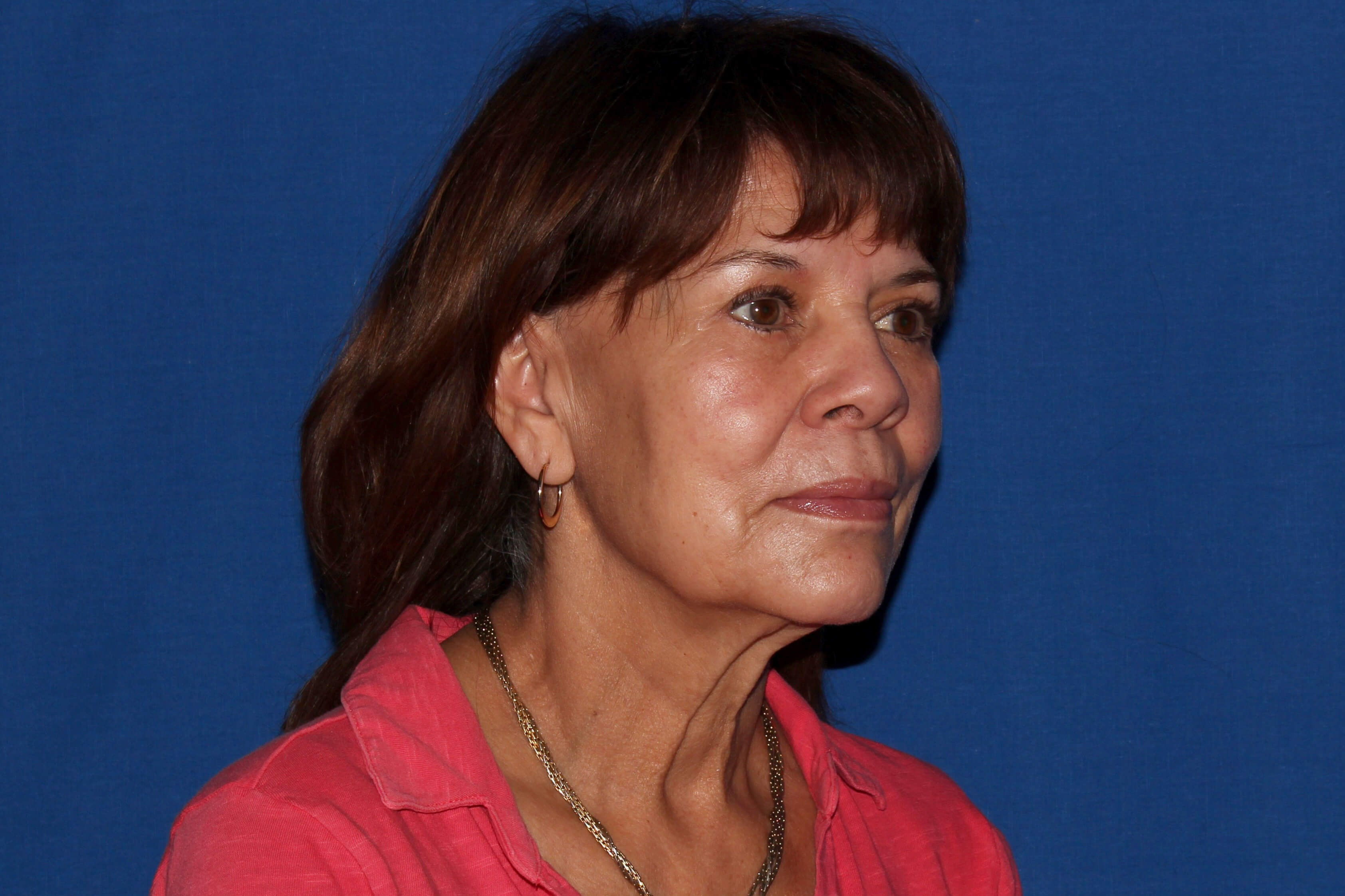 Facelift with Fat Transfer Before - Right Oblique View