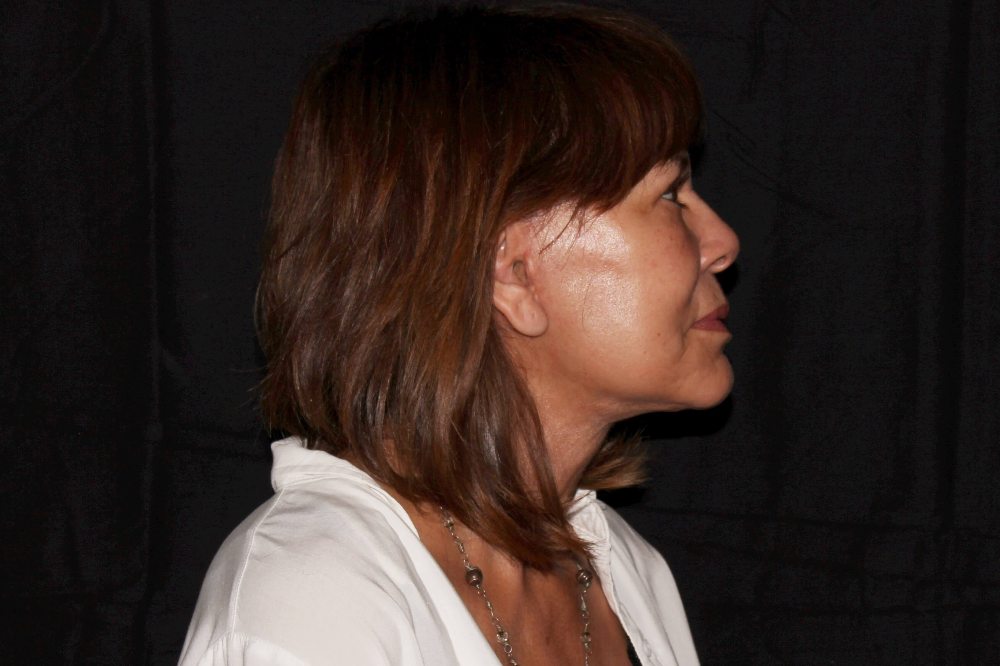 Facelift with Fat Transfer after - Right View