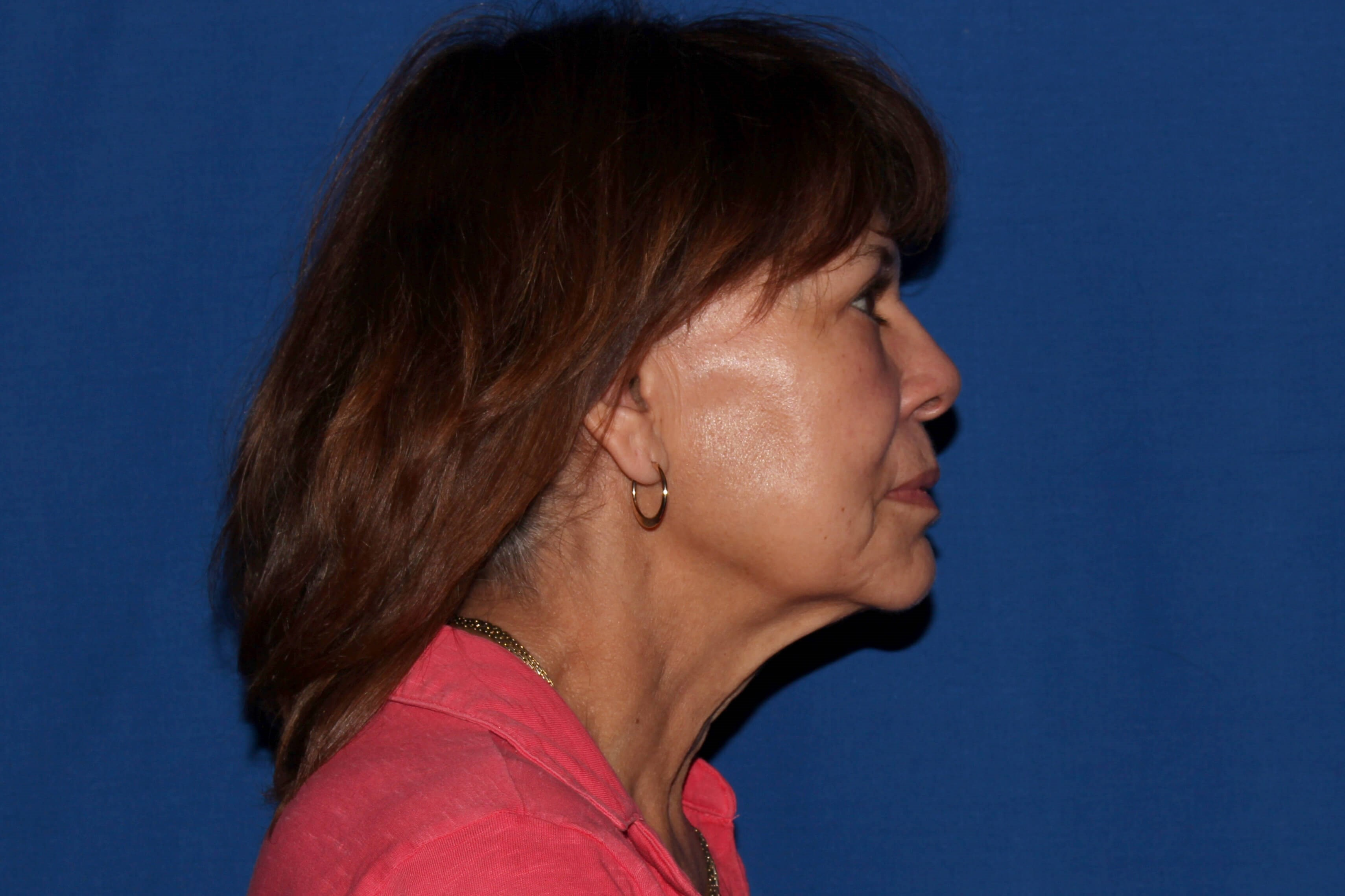 Facelift with Fat Transfer Before - Right View