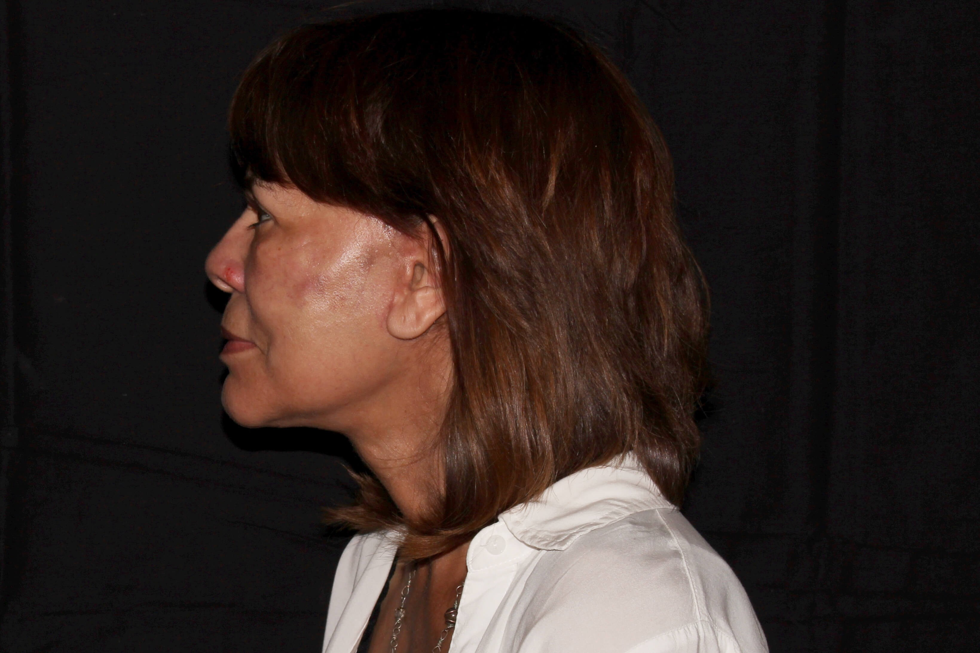 Facelift with Fat Transfer after - Left View