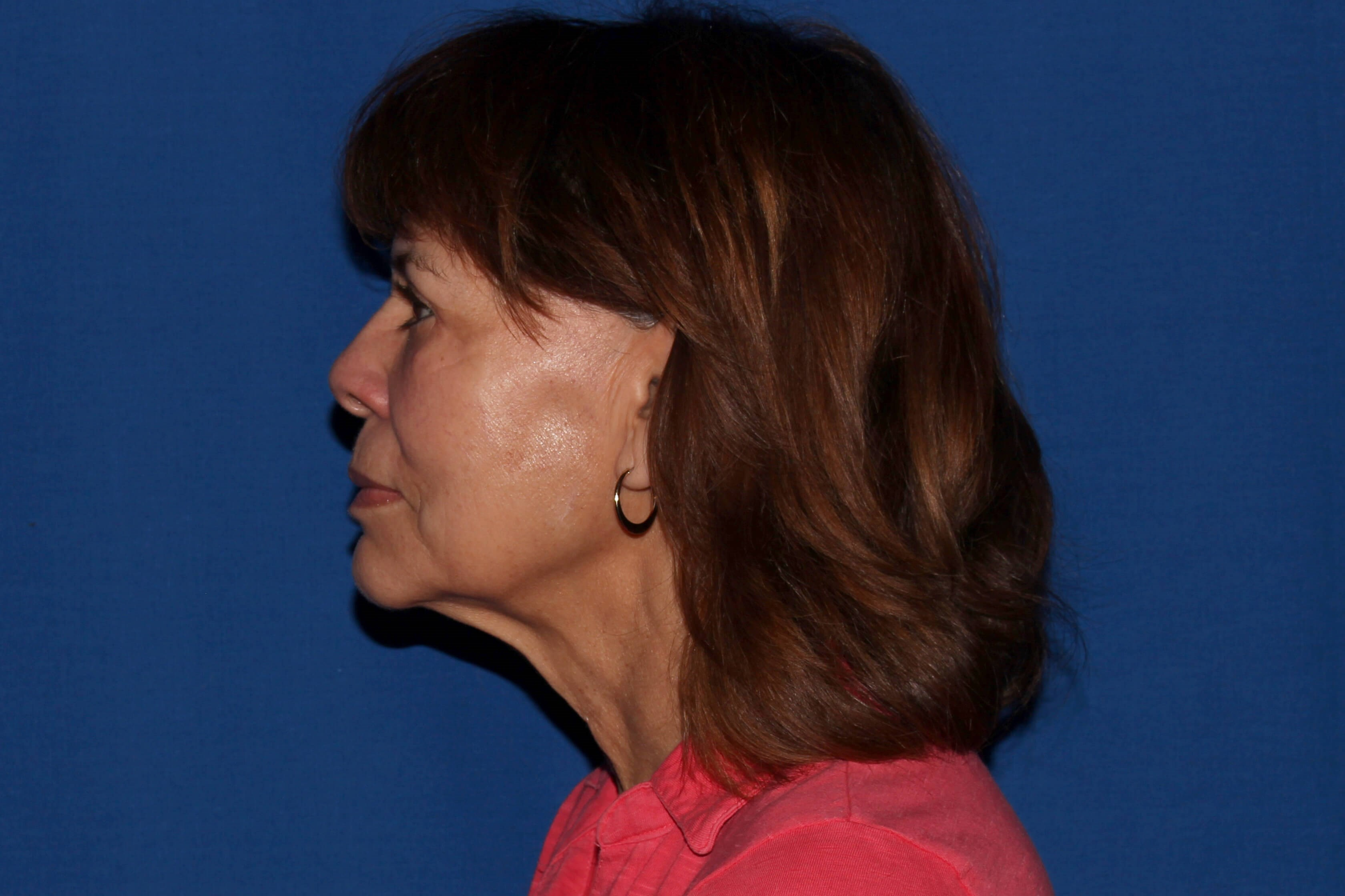 Facelift with Fat Transfer Before - Left View