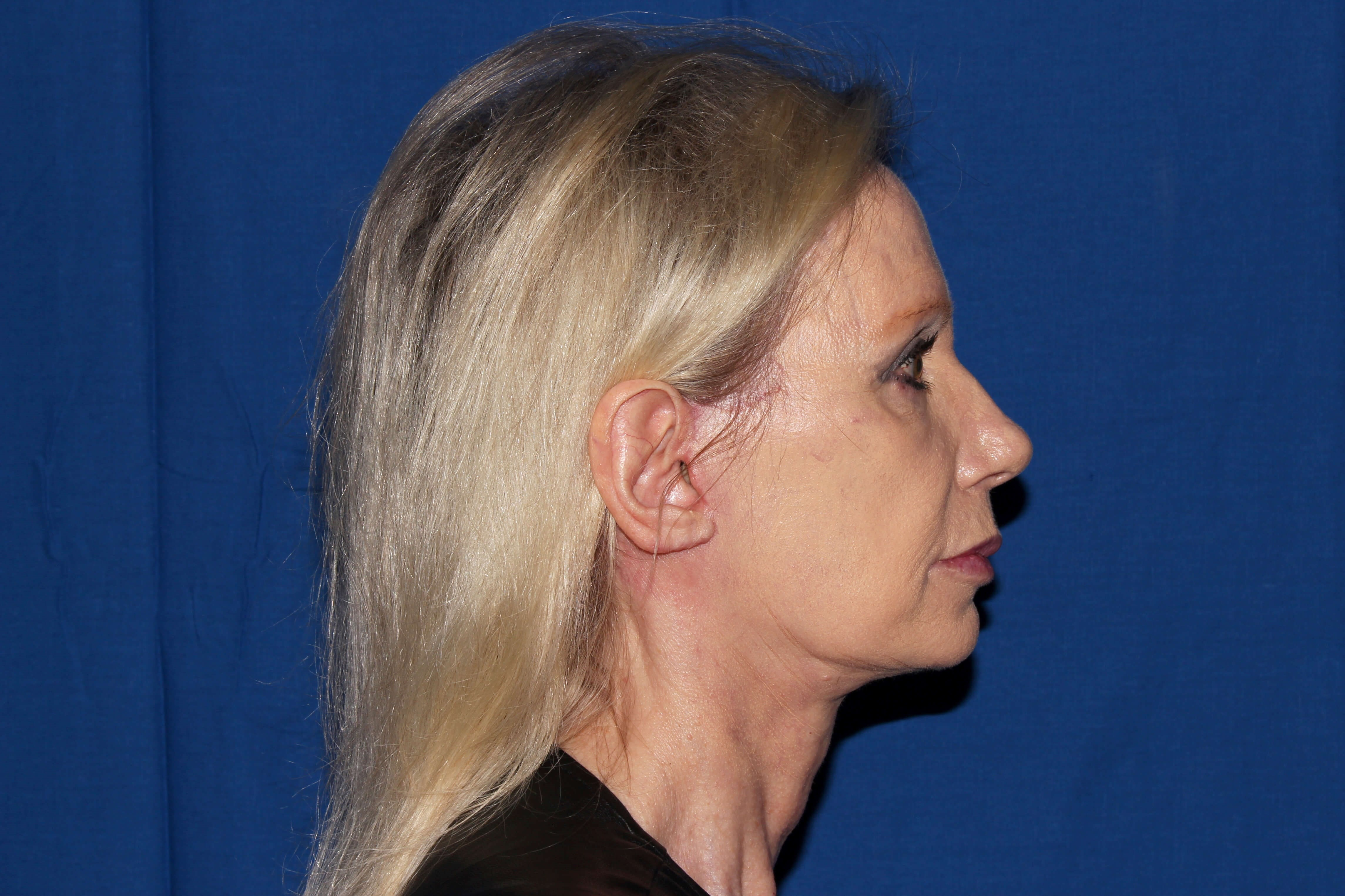 Facelift with Earlobe Repair after - Right View