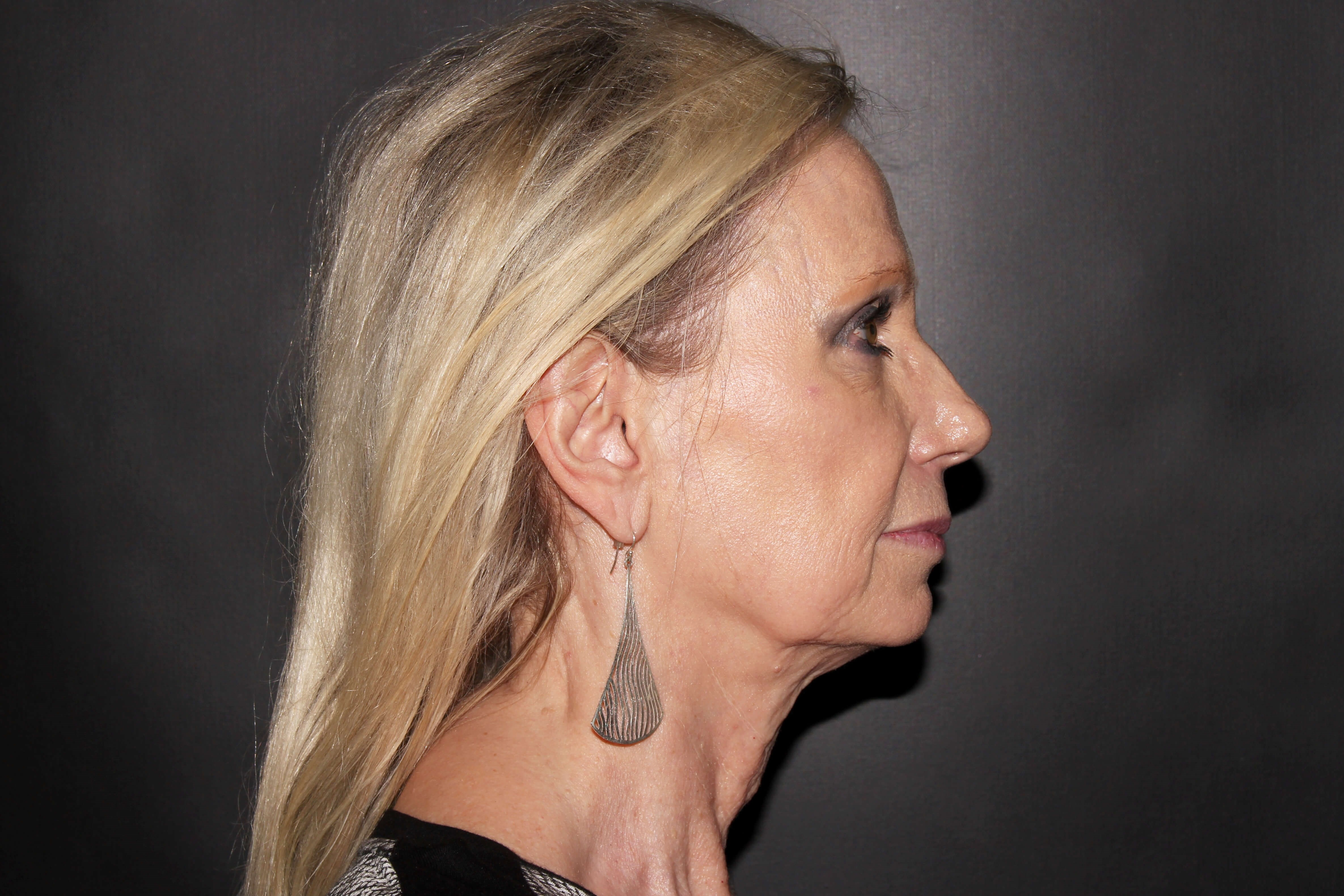 Facelift with Earlobe Repair Before - Right View