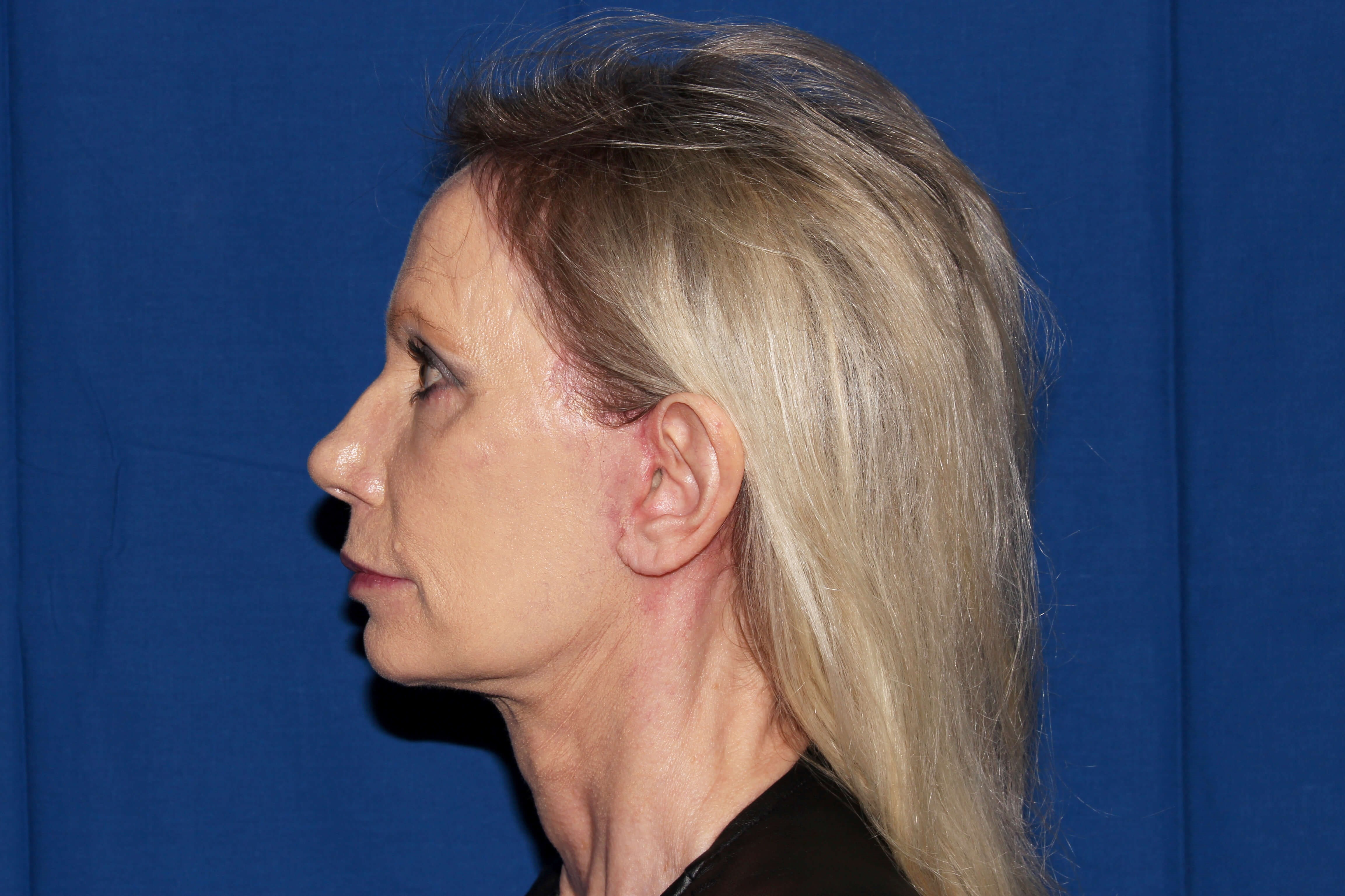 Facelift with Earlobe Repair after - Left View