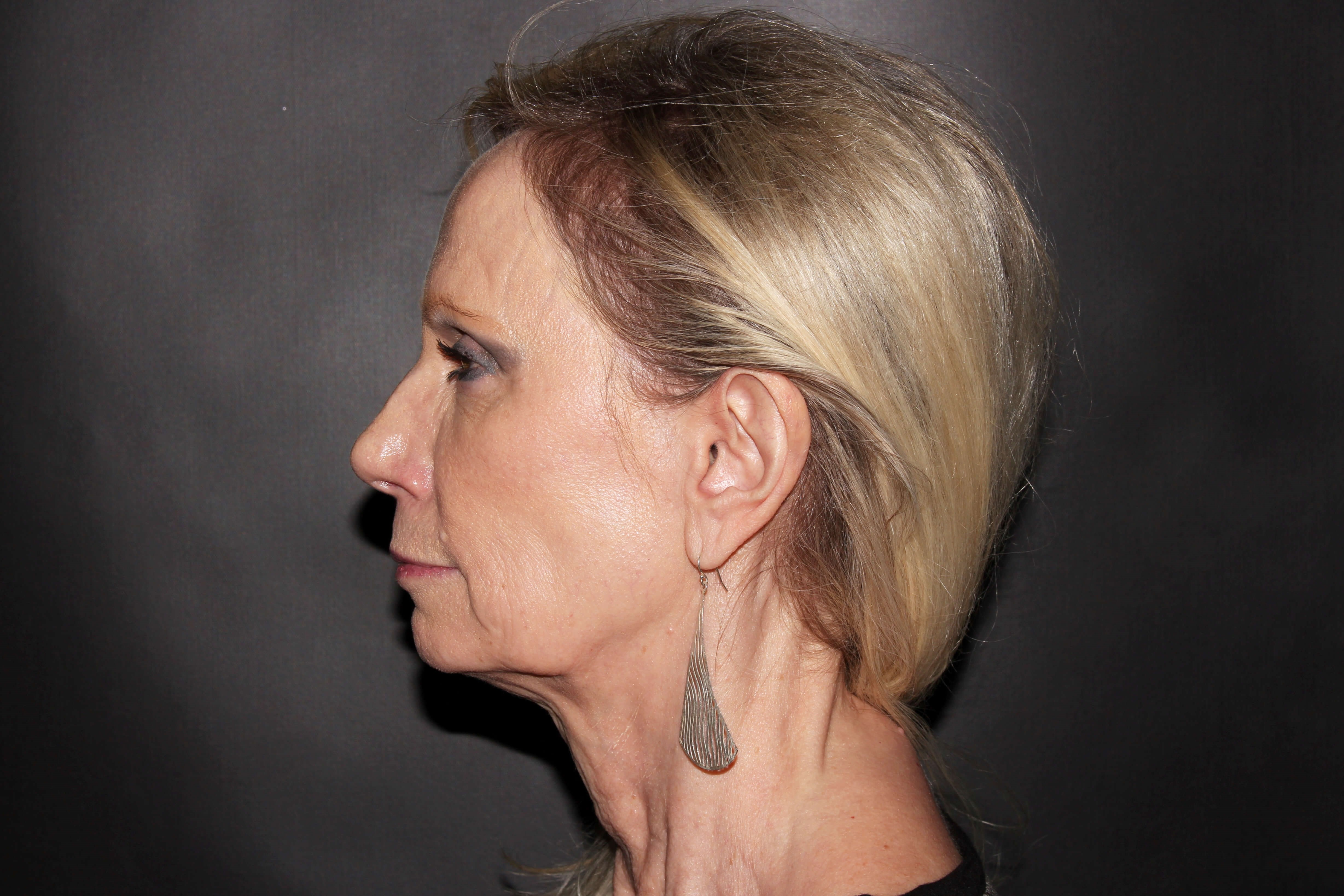 Facelift with Earlobe Repair Before - Left View