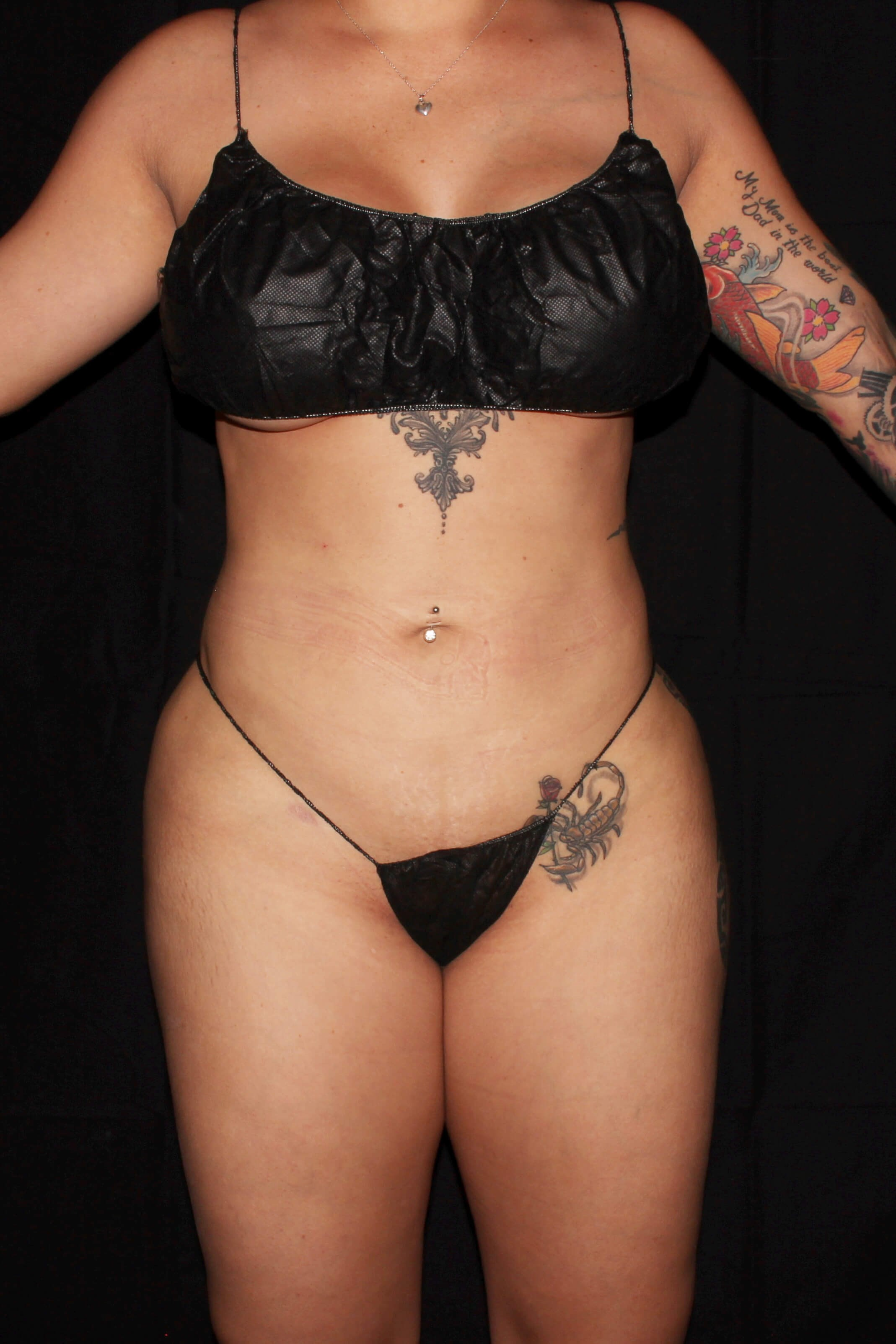 After Liposuction - Full Torso Lipo, BBL