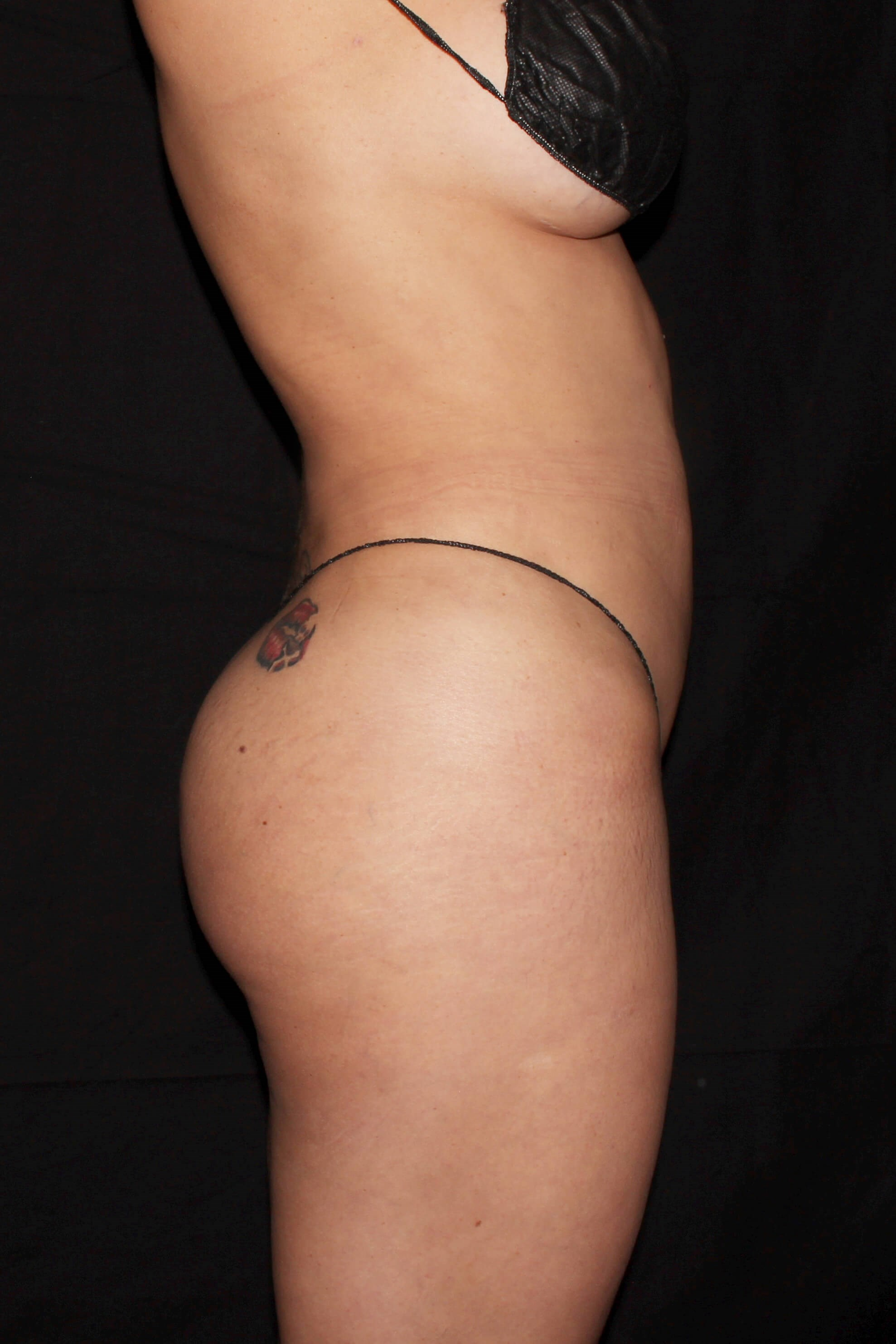 After Liposuction - Right View