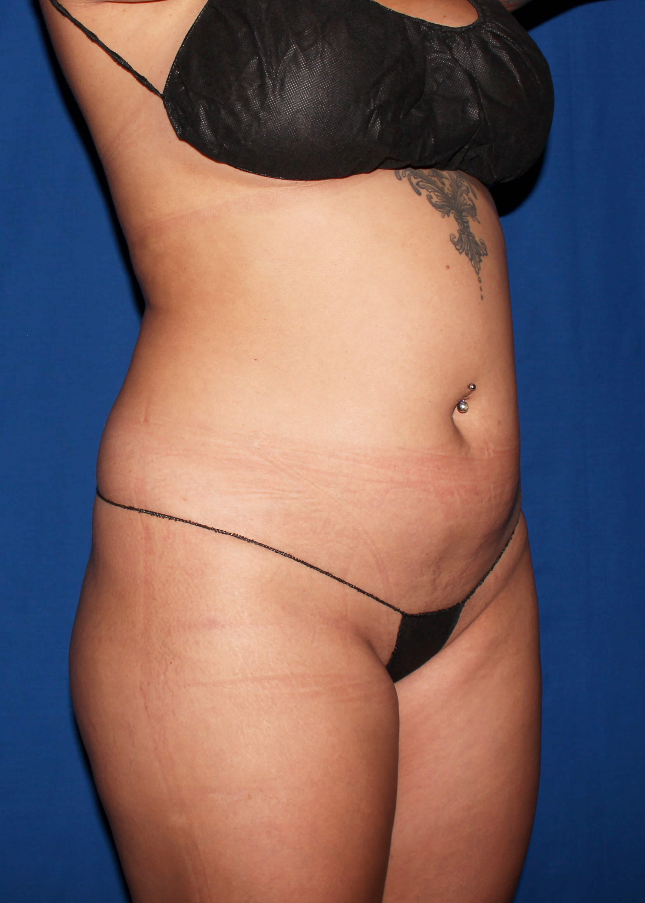 Before Liposuction - Right Oblique View