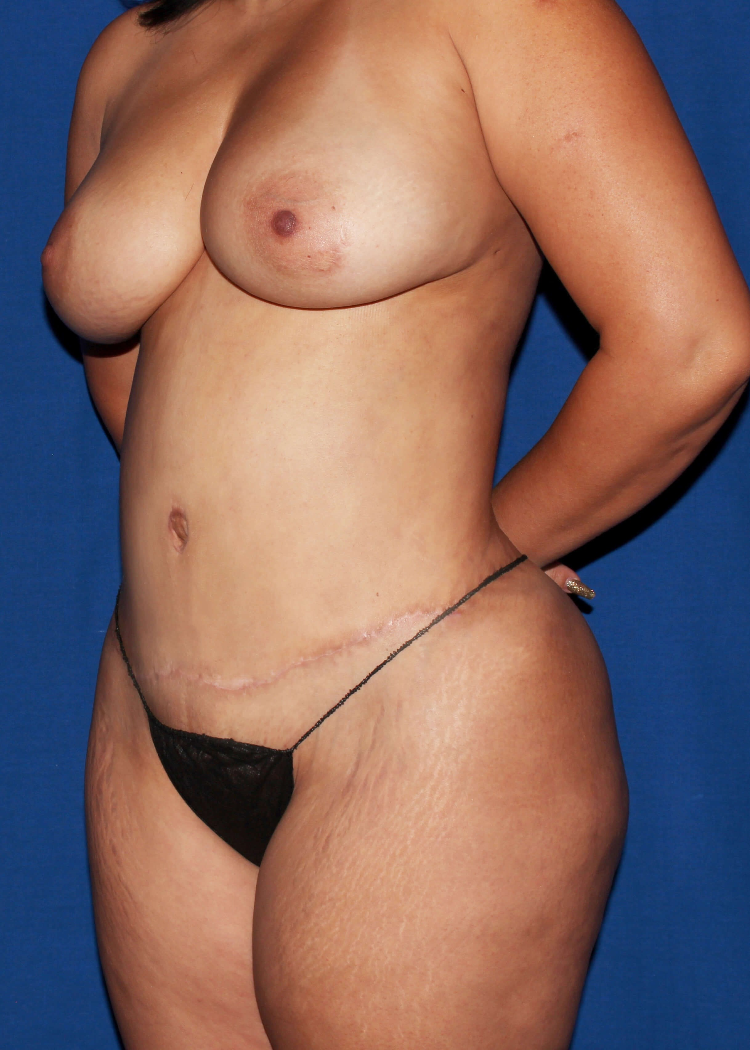 After Tummy Tuck - Left Oblique View