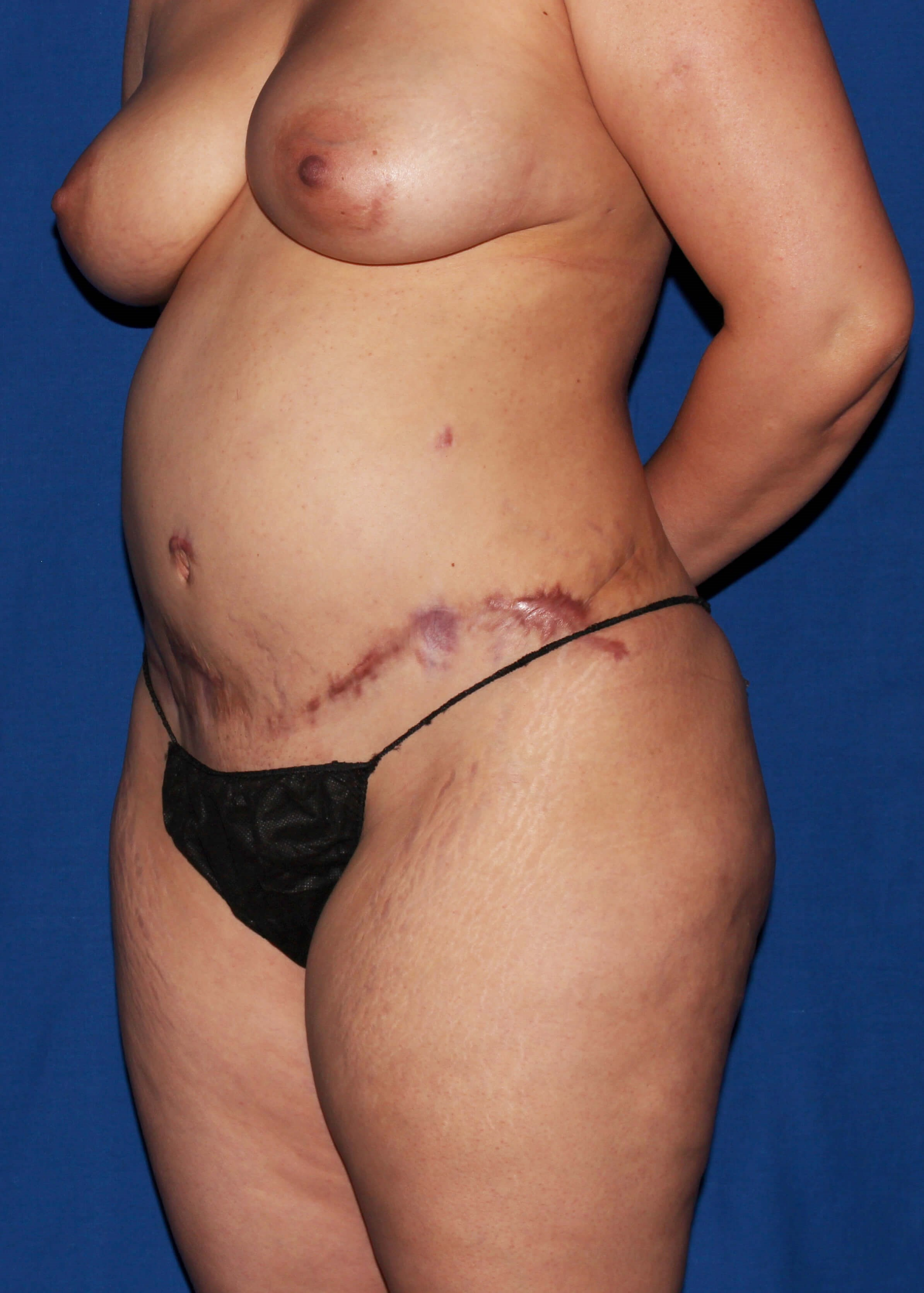 Before Tummy Tuck - Left Oblique View