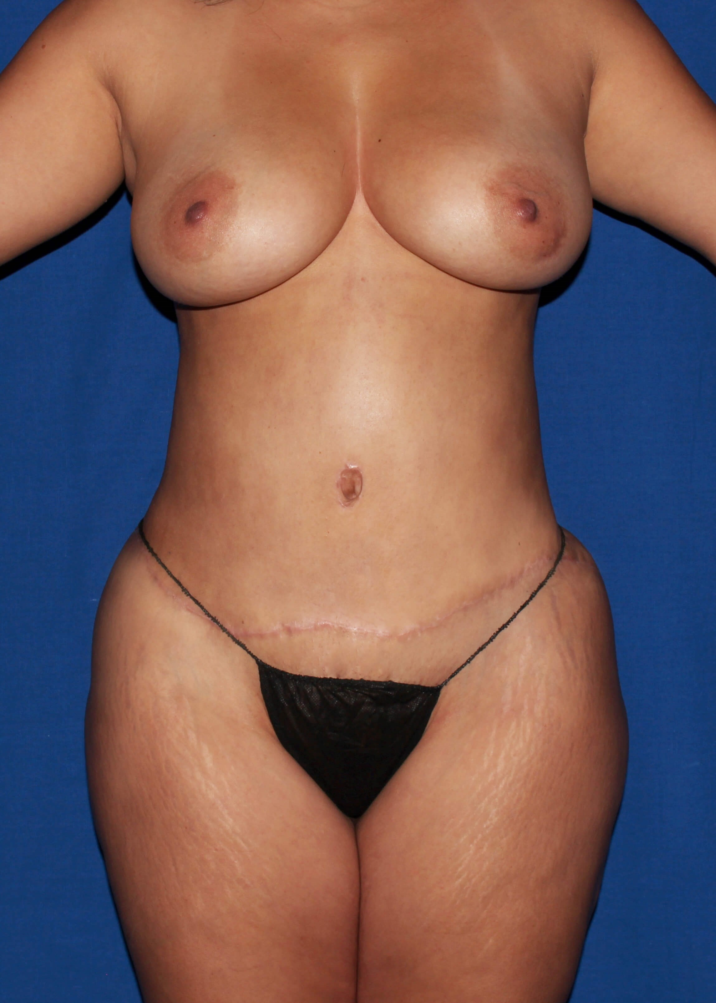 After Tummy Tuck - Scar Revision and BBL