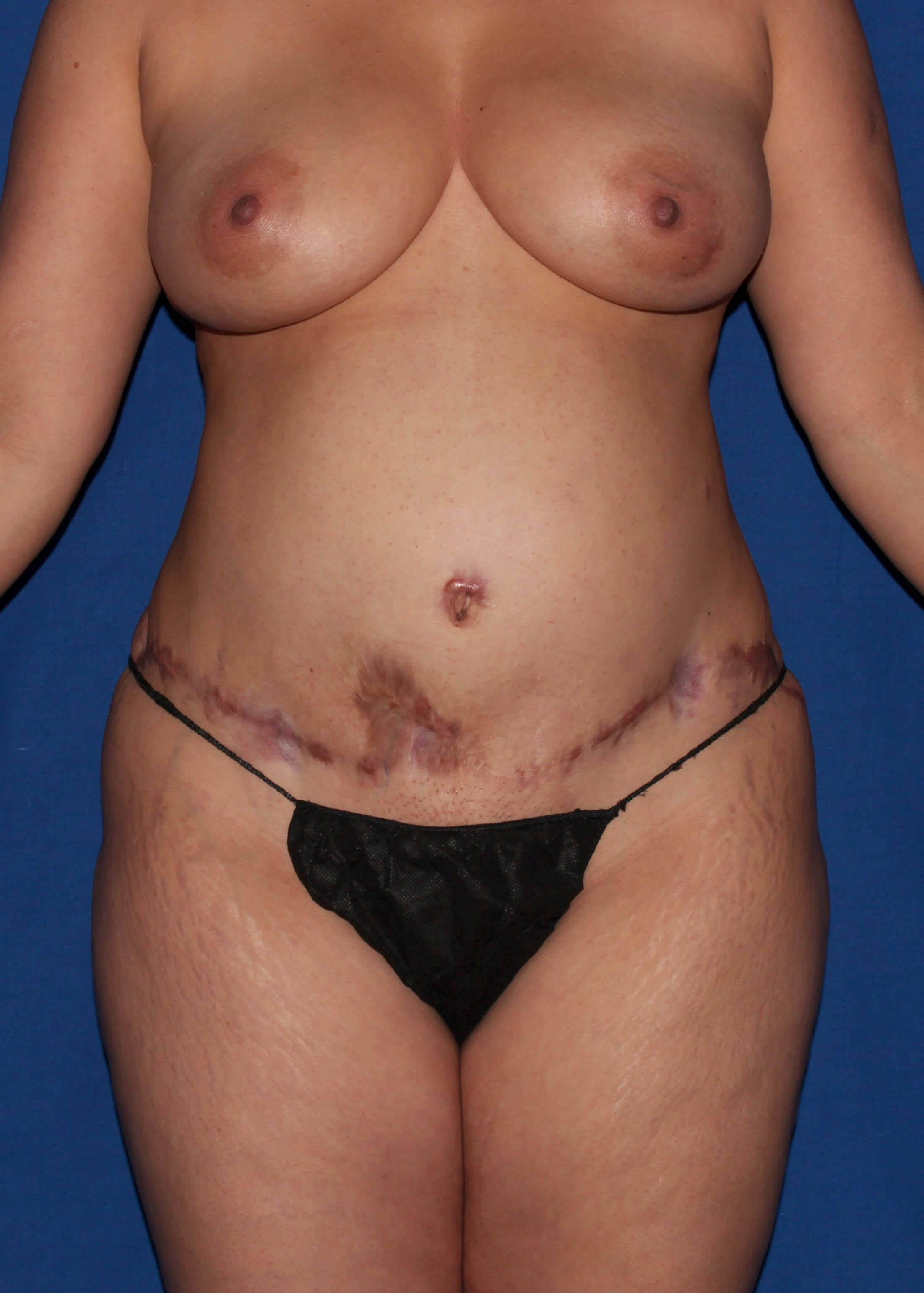 Before Tummy Tuck - Scar Revision and BBL