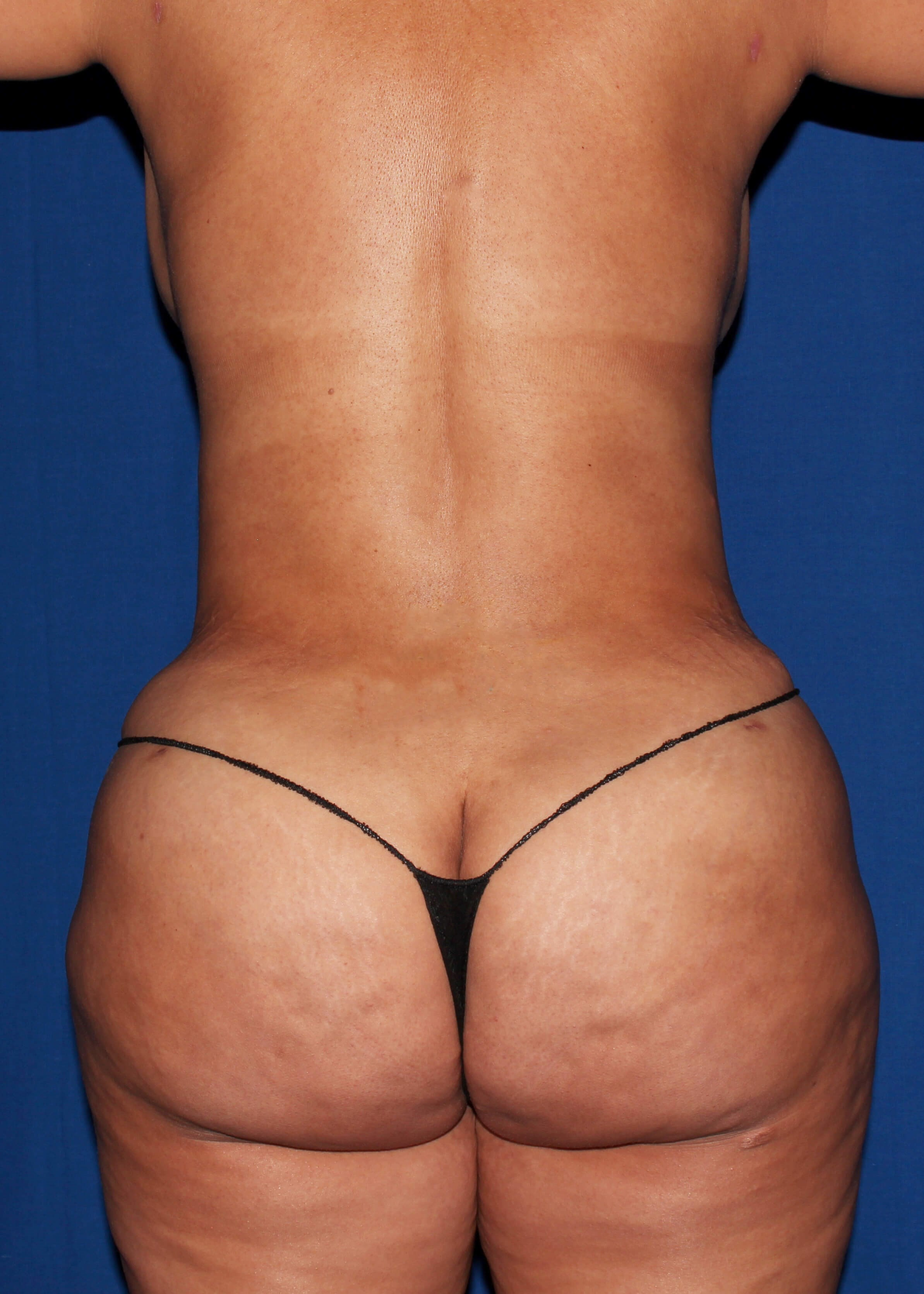 After Tummy Tuck - Back View