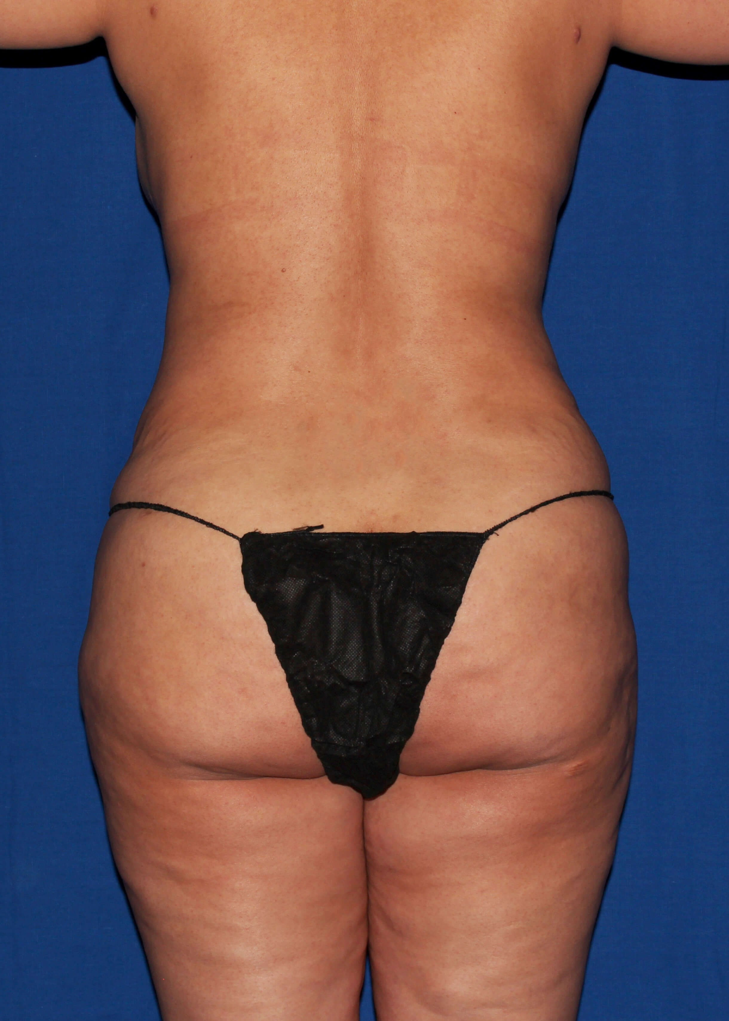 Before Tummy Tuck - Back View