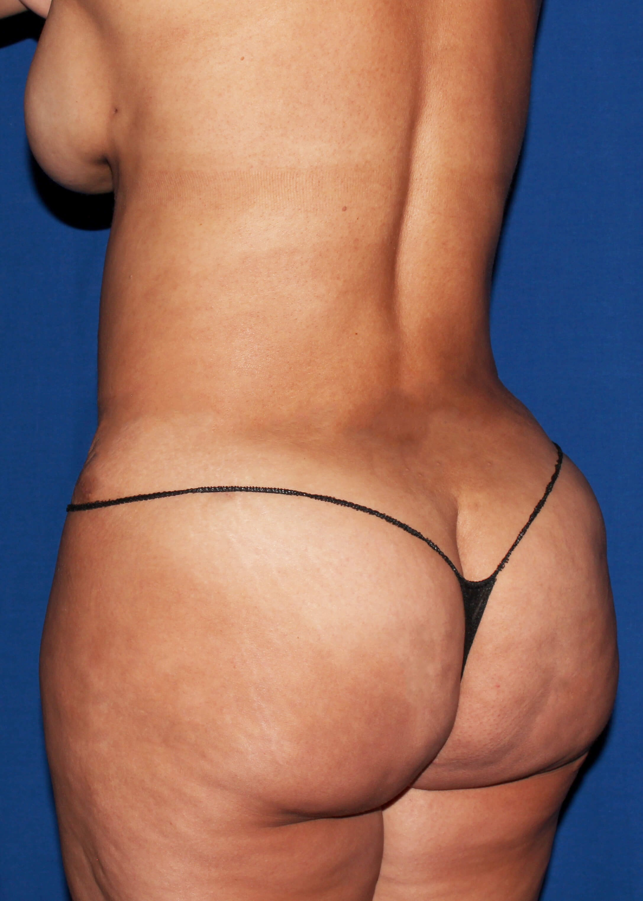 Liposuction After - Left Back View