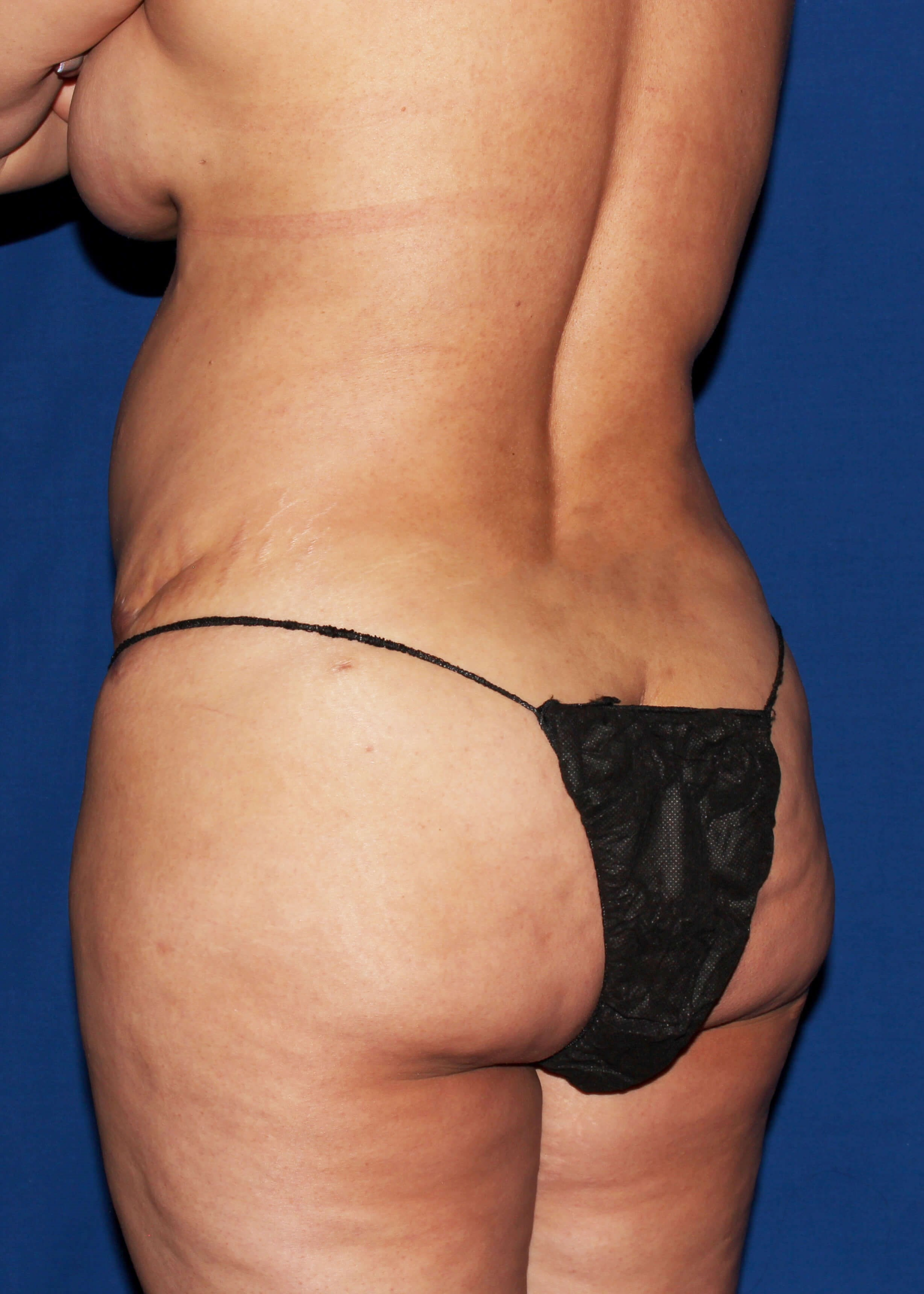 Liposuction Before - Left Back View