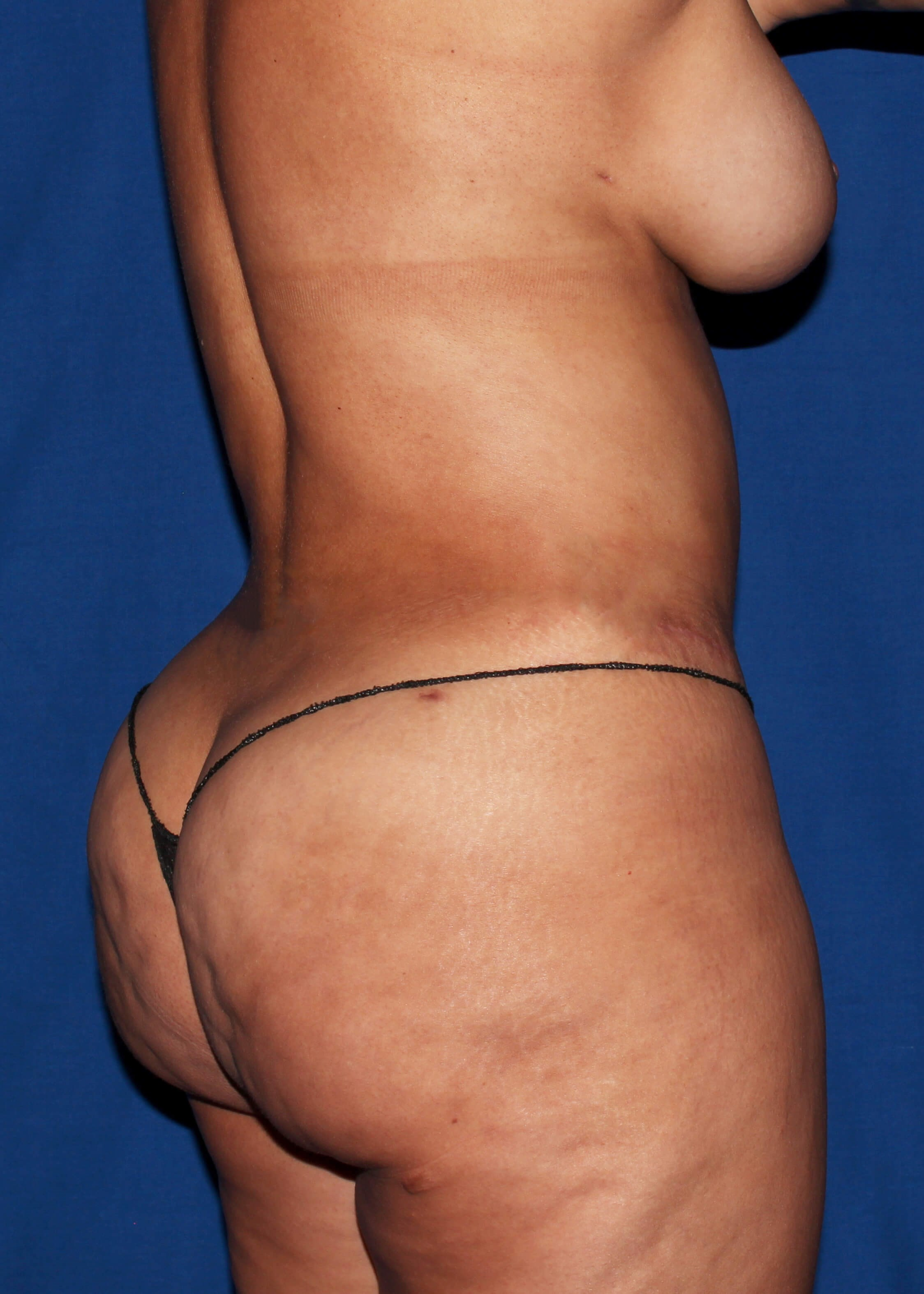 After Tummy Tuck - Right Back View
