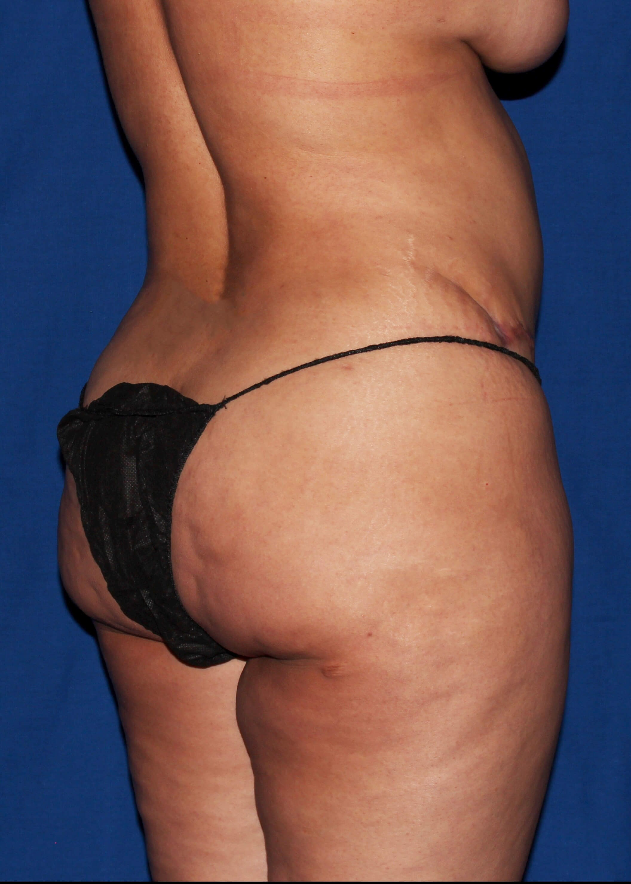Before Tummy Tuck - Right Back View