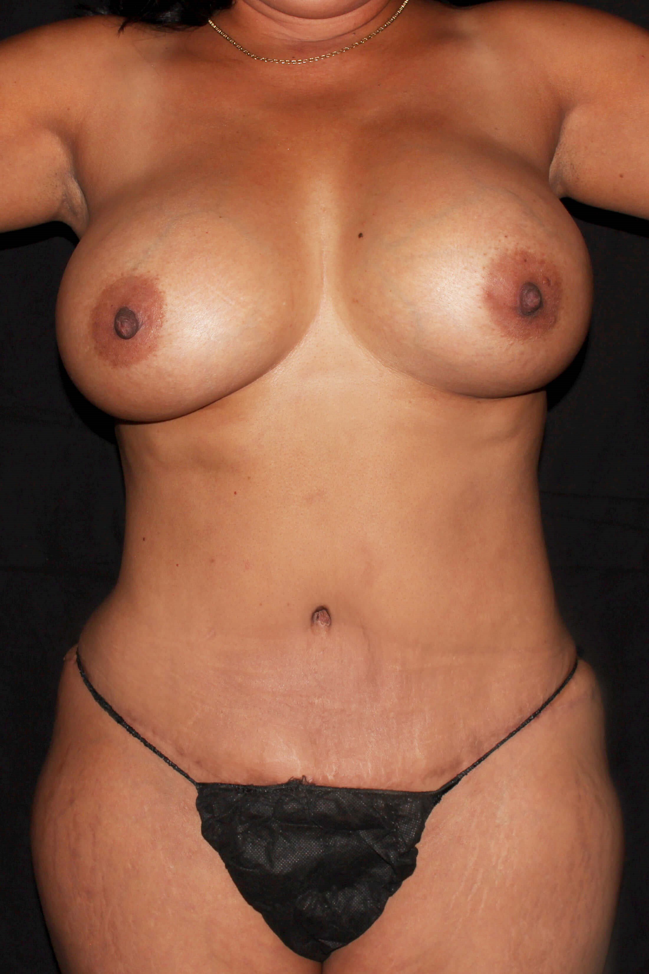 Breast Augmentation and Mommy Makeover After - Mommy Makeover