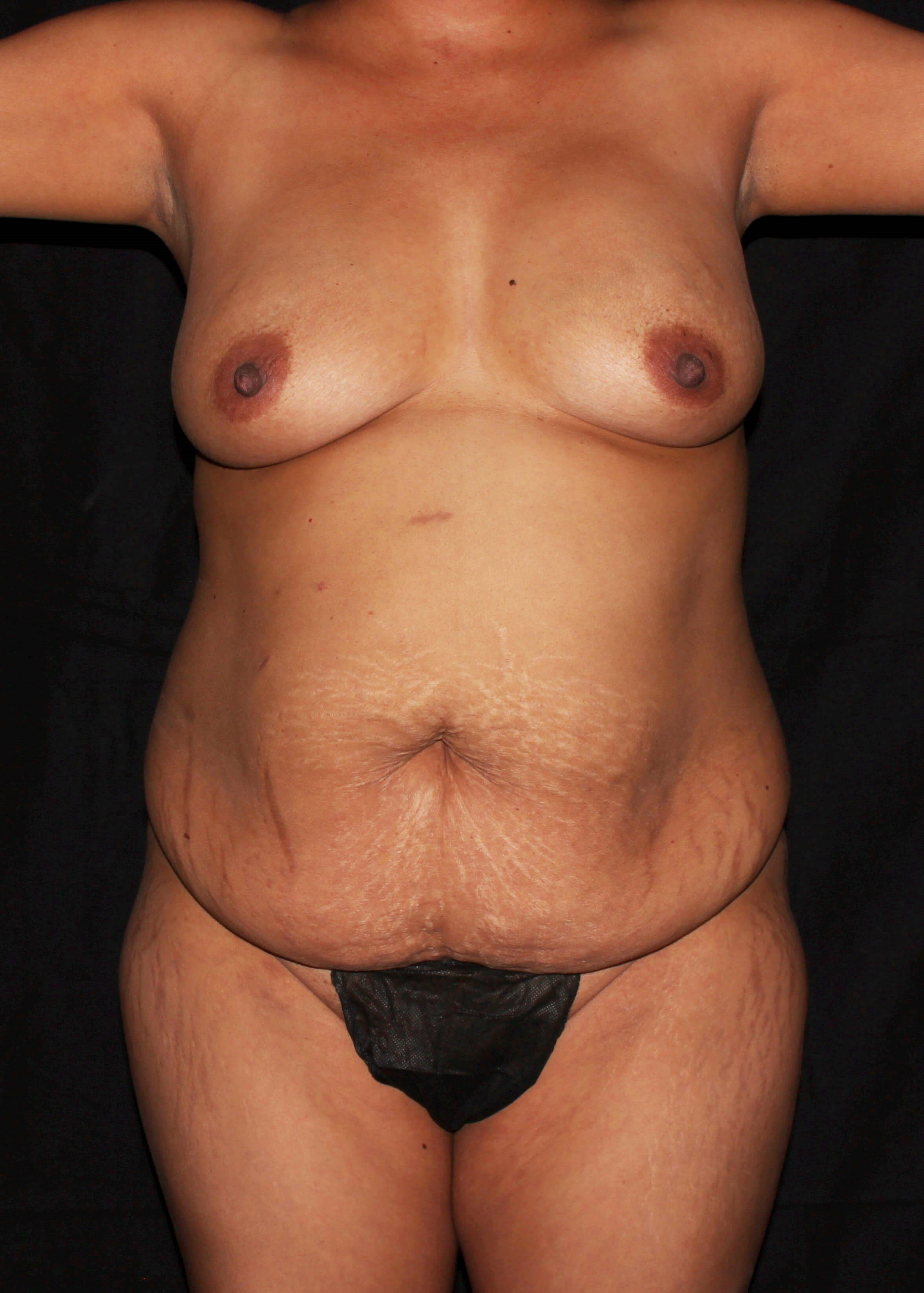Breast Augmentation and Mommy Makeover Before - Mommy Makeover