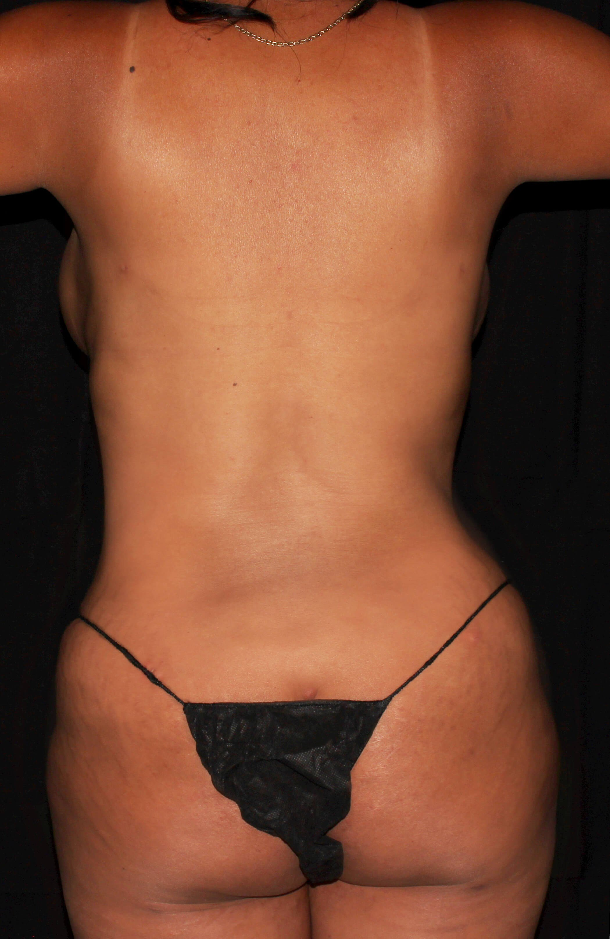 Breast Augmentation and Mommy Makeover After - Back View