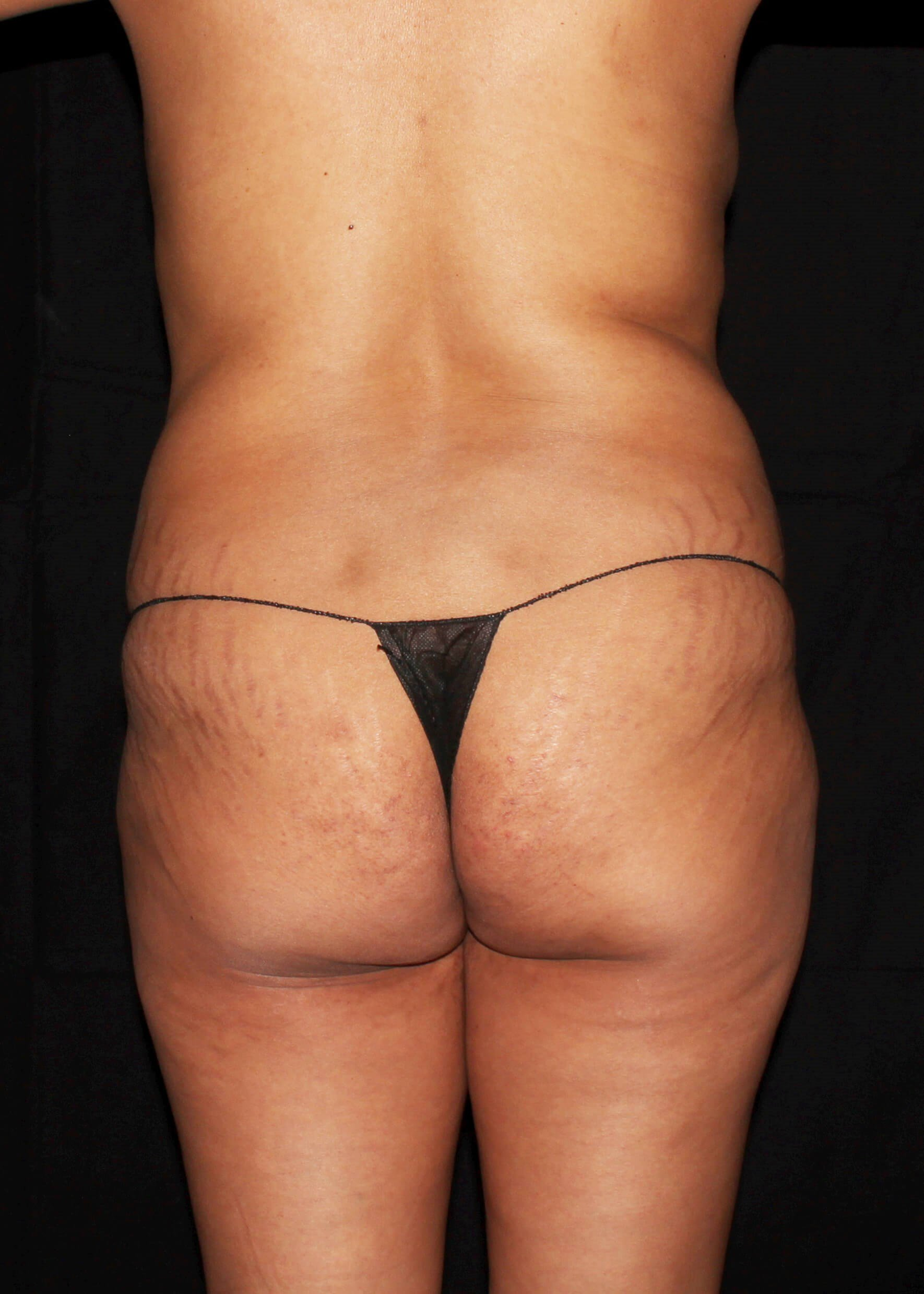 Breast Augmentation and Mommy Makeover Before - Back View