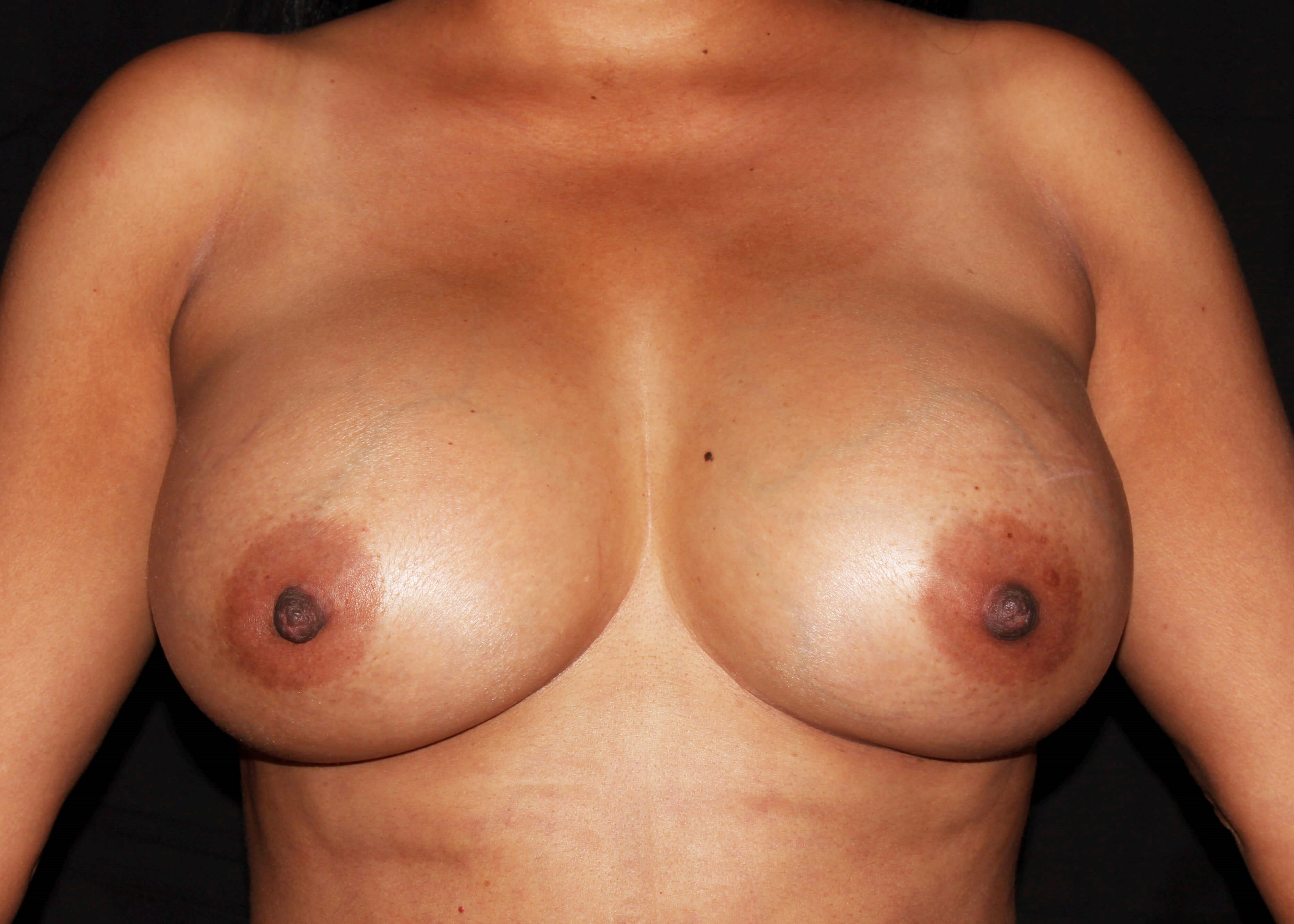 Breast Augmentation and Mommy Makeover After - Scottsdale Breast Augmentation