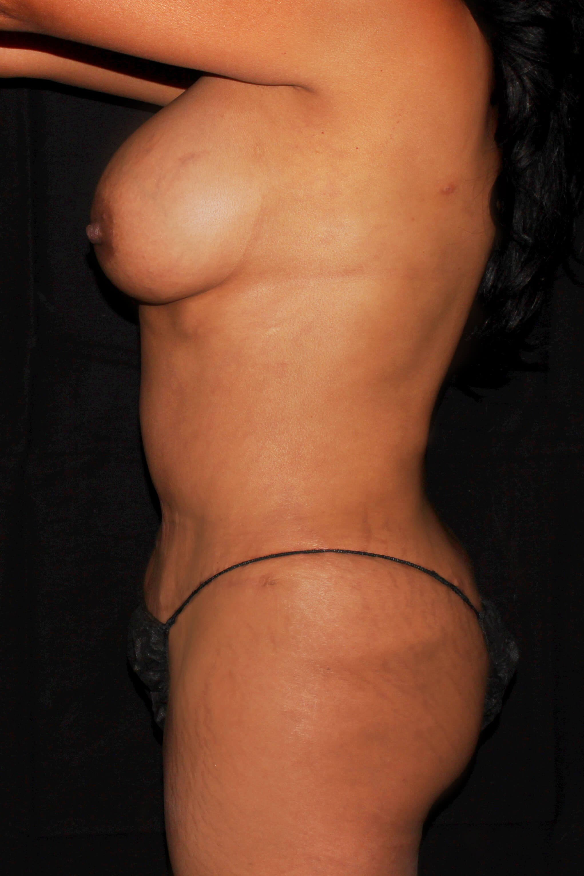 Breast Augmentation and Mommy Makeover After - Left View