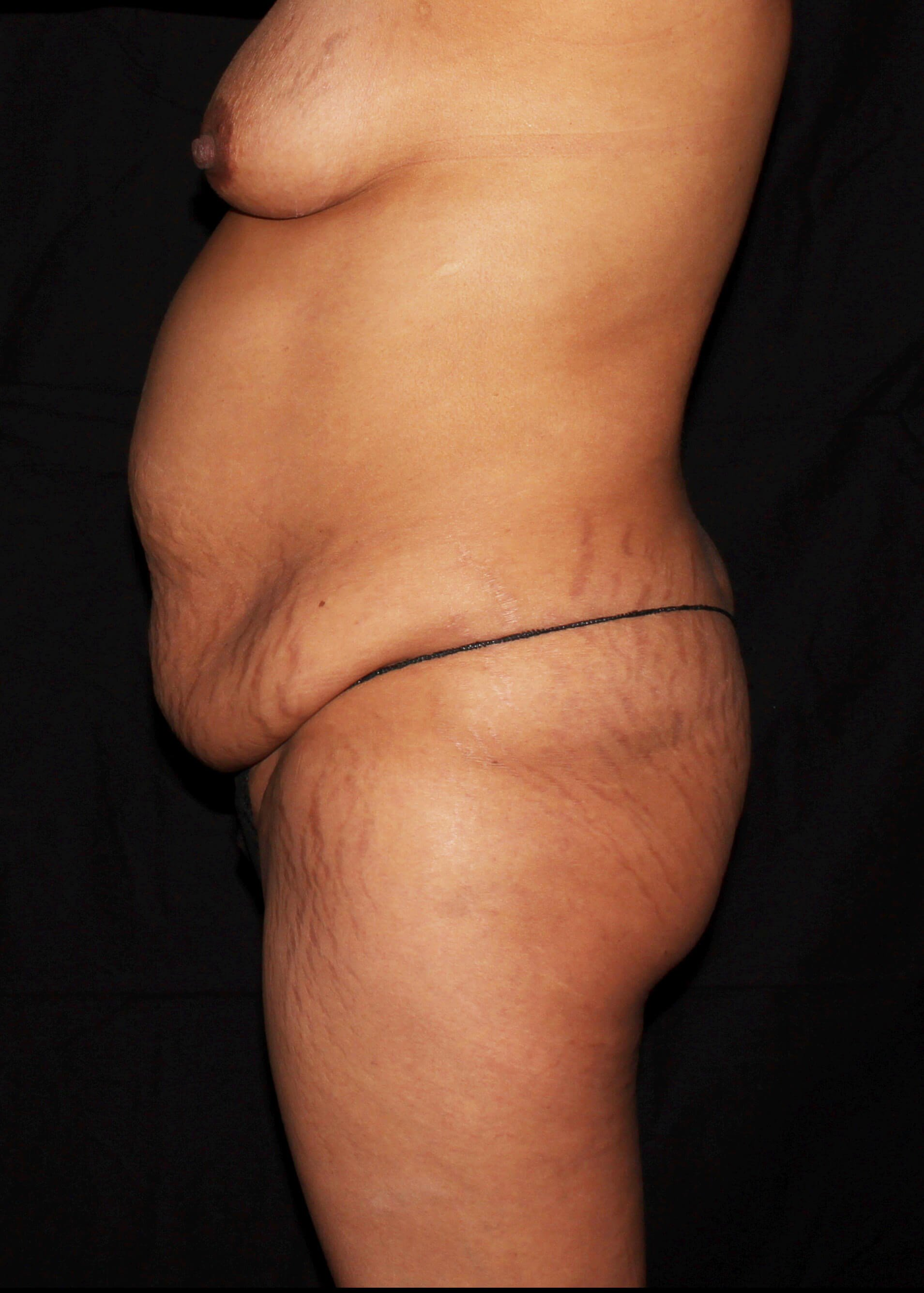Breast Augmentation and Mommy Makeover Before - Left View