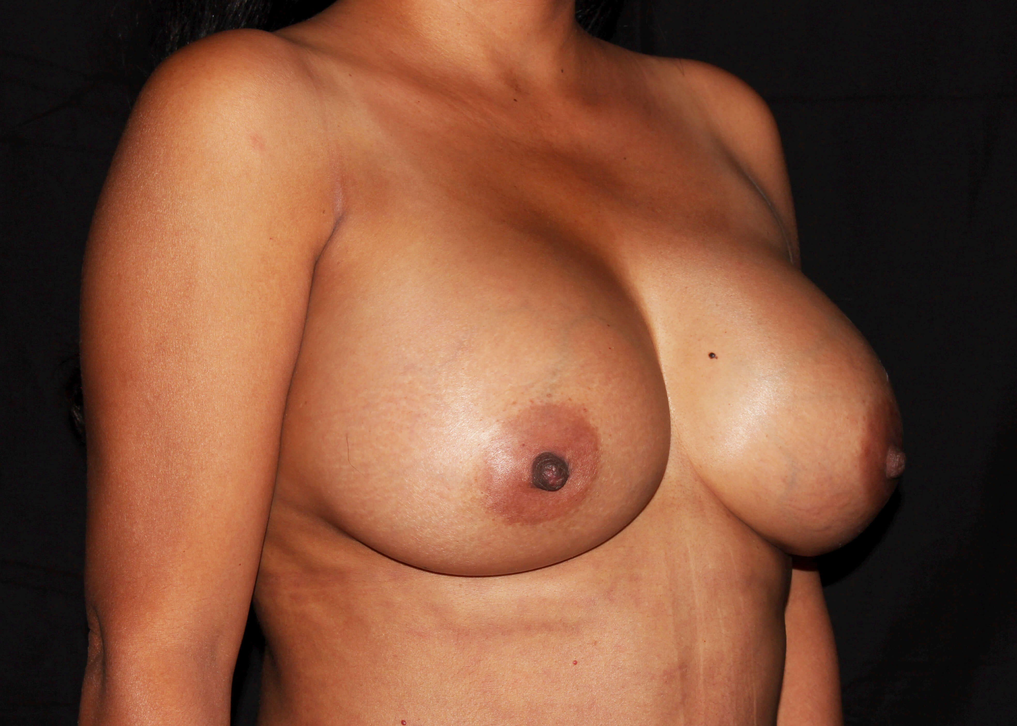 Breast Augmentation and Mommy Makeover After - Right Oblique View