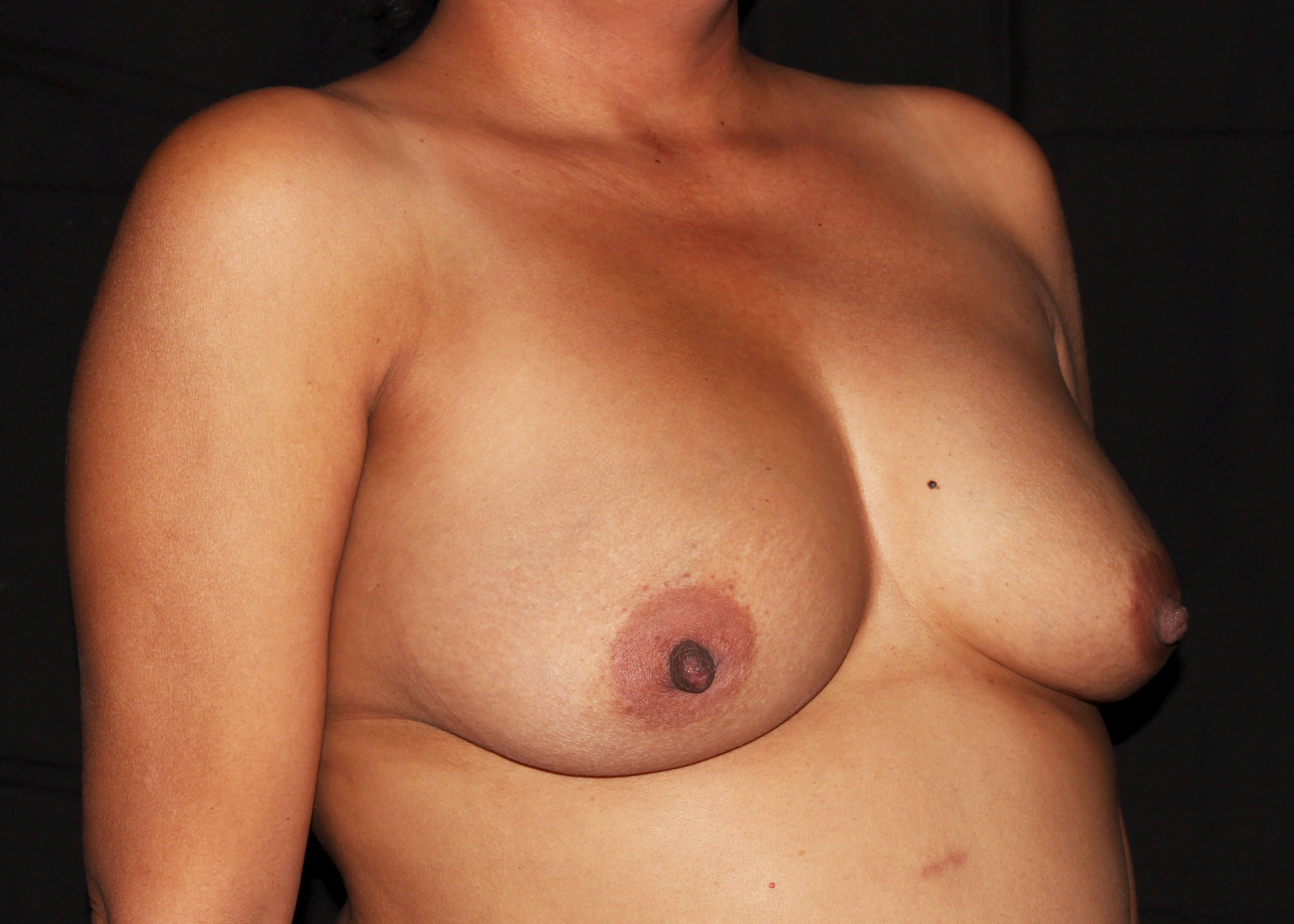 Breast Augmentation and Mommy Makeover Before - Right Oblique View