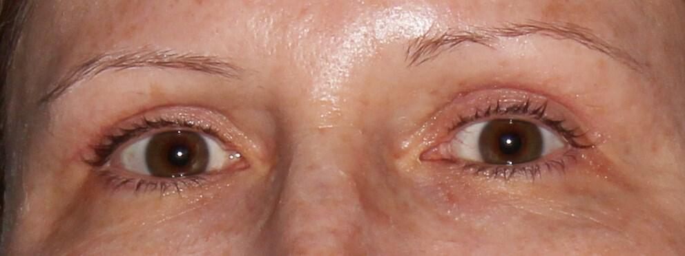 Upper Eyelid Surgery After - Upper Eyelid Surgery