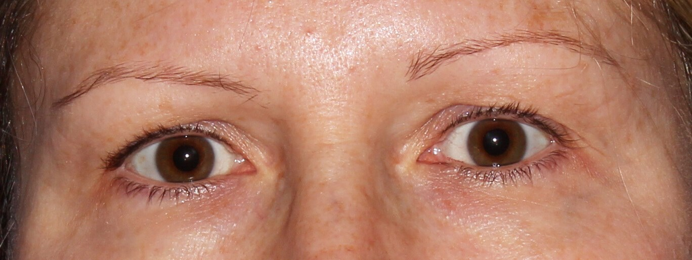 Upper Eyelid Surgery Before - Upper Eyelid Surgery