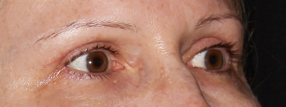 Upper Eyelid Surgery After - Right Oblique View