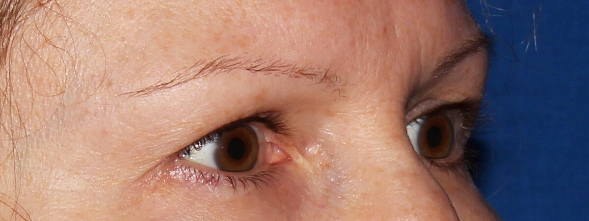 Upper Eyelid Surgery Before - Right Oblique View