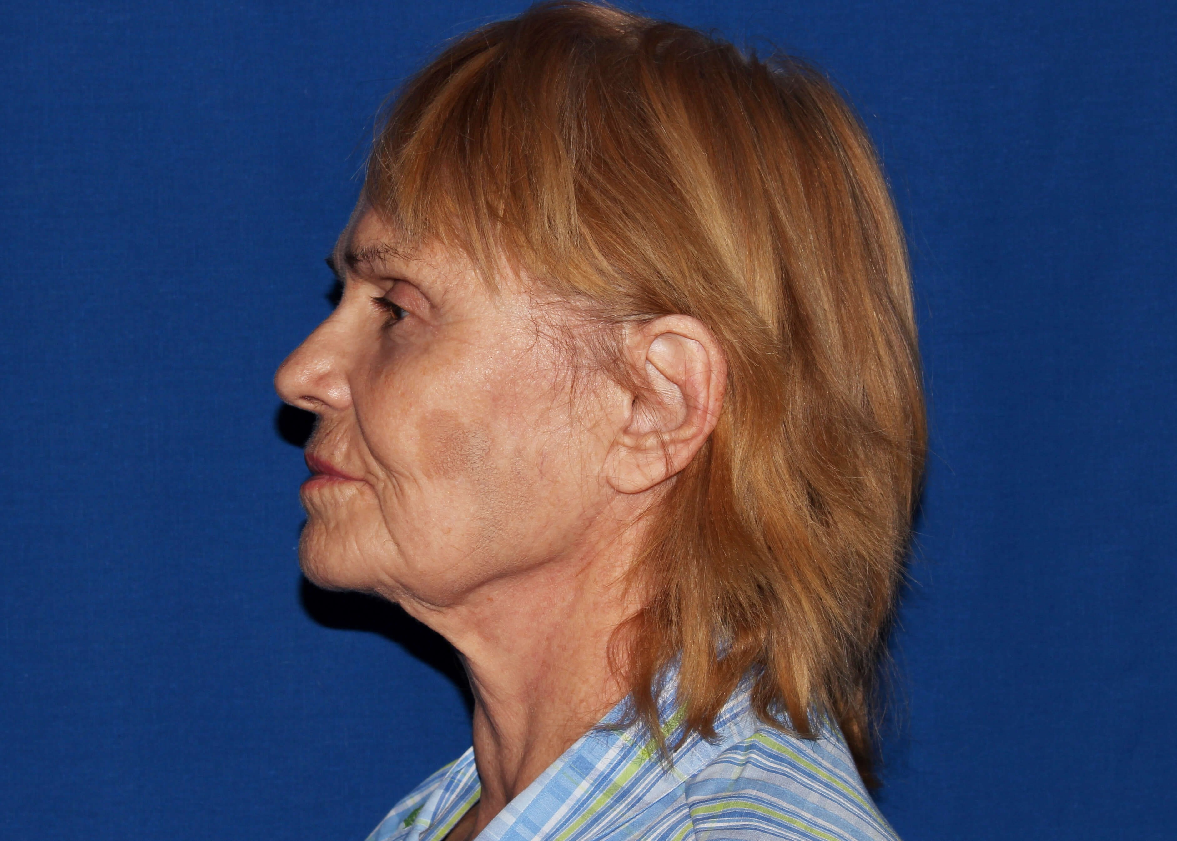 Necklift Before - Left View