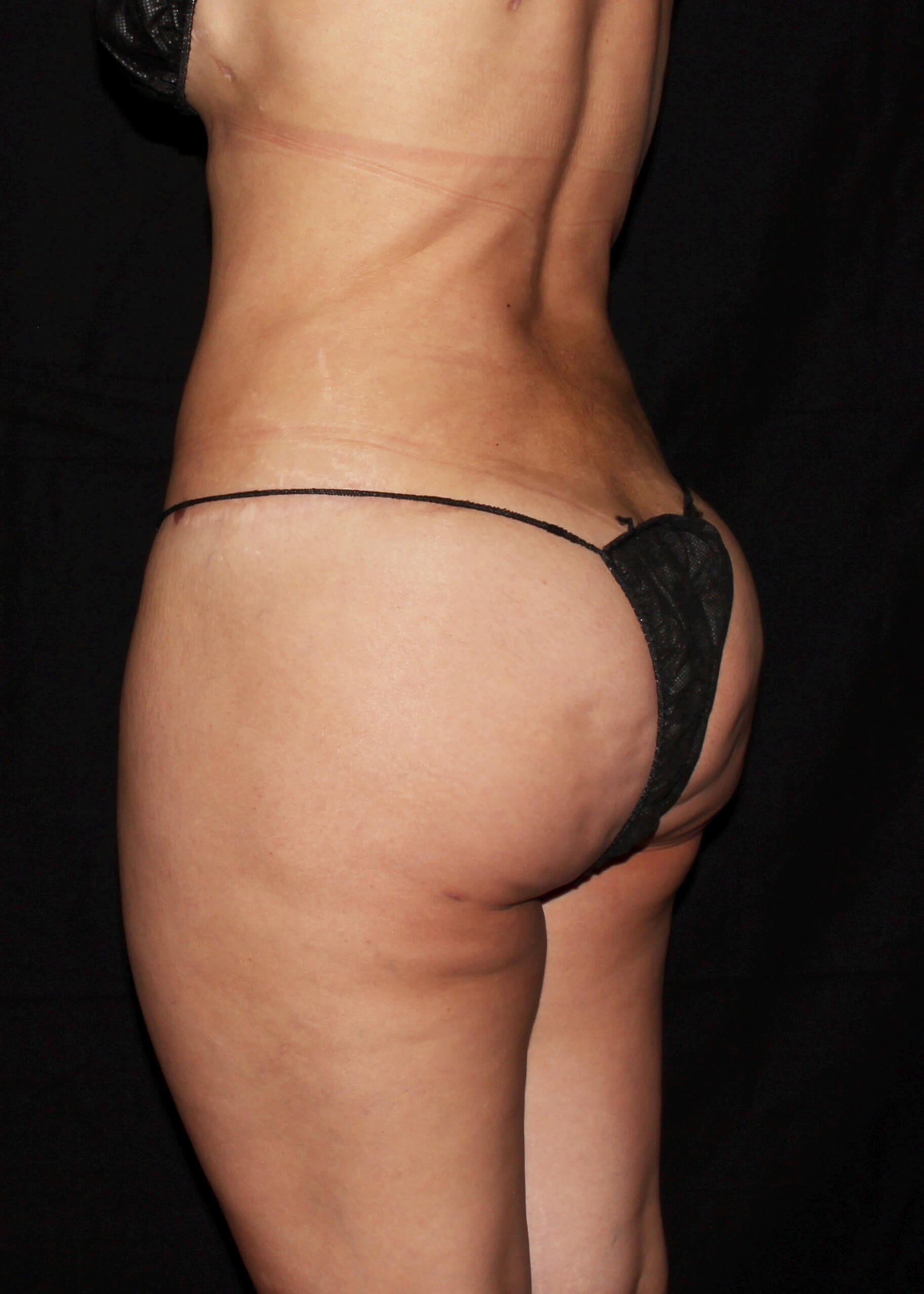 Full Torso Liposuction After - Left Back View