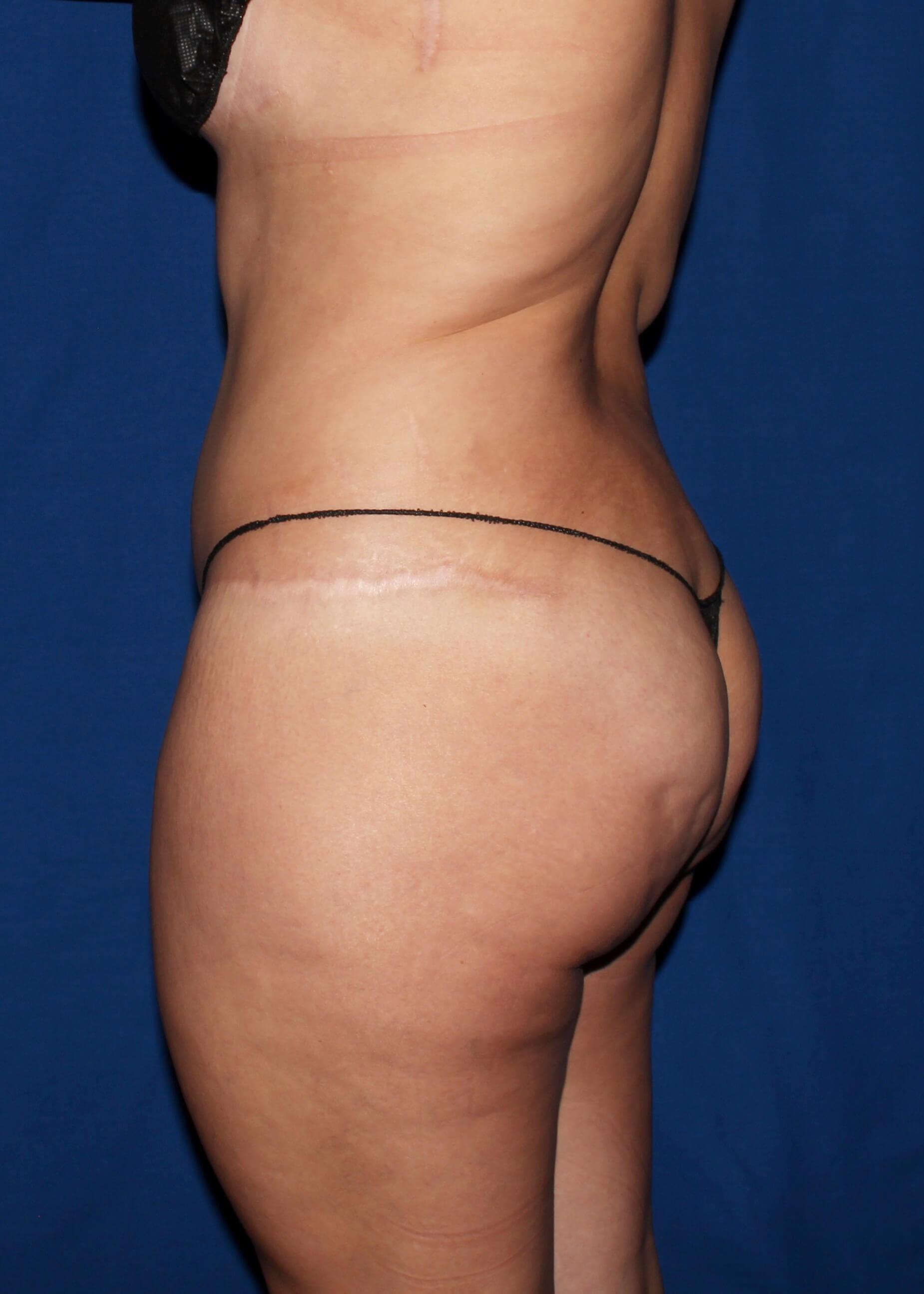 Full Torso Liposuction Before - Left Back View