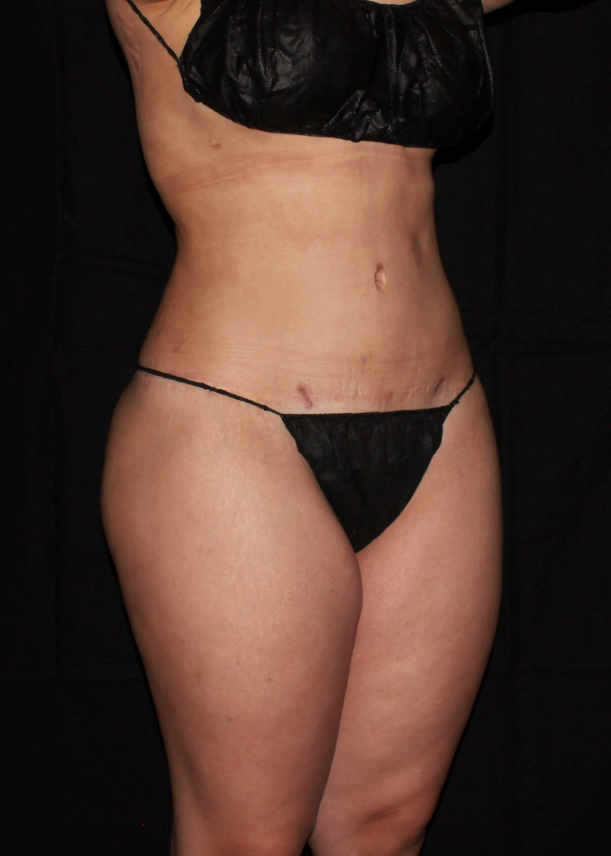Full Torso Liposuction After - Right Oblique View