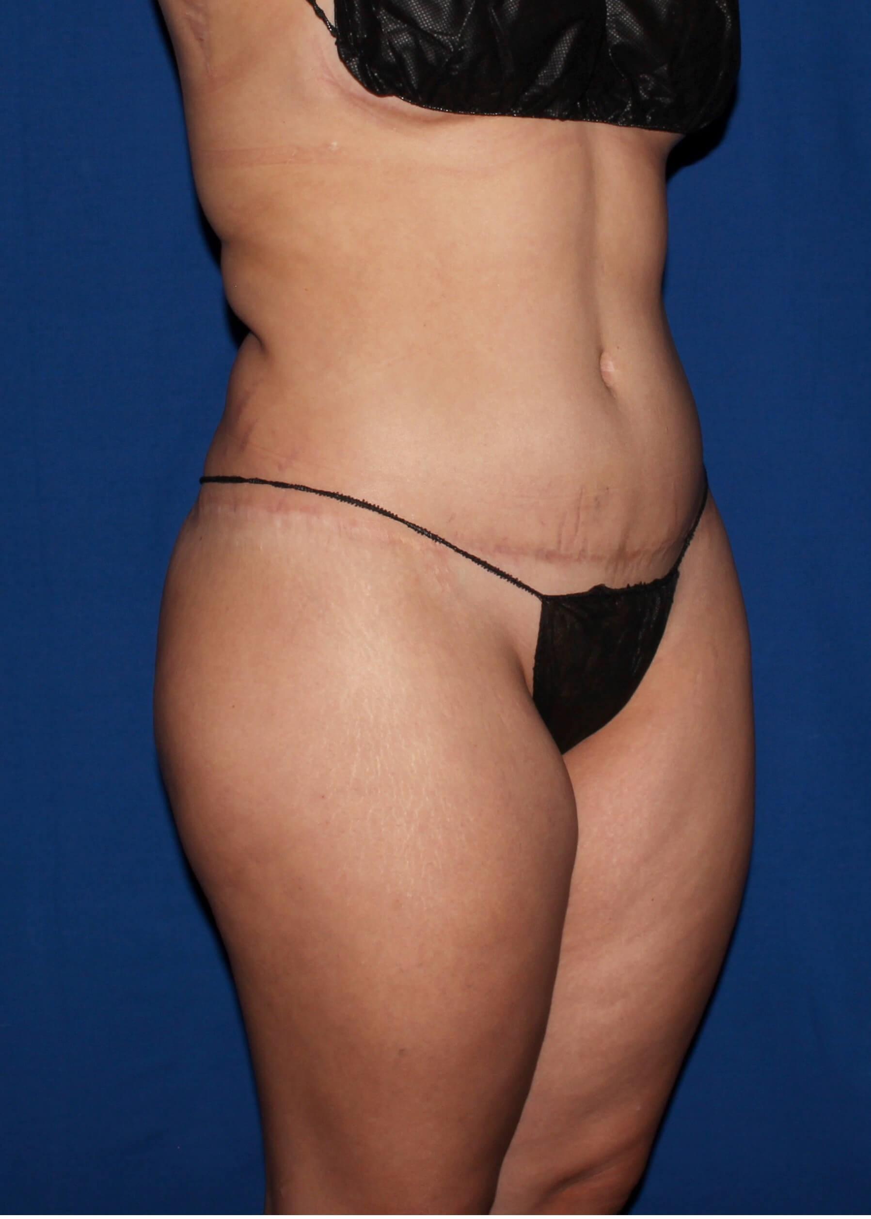 Full Torso Liposuction Before - Right Oblique View