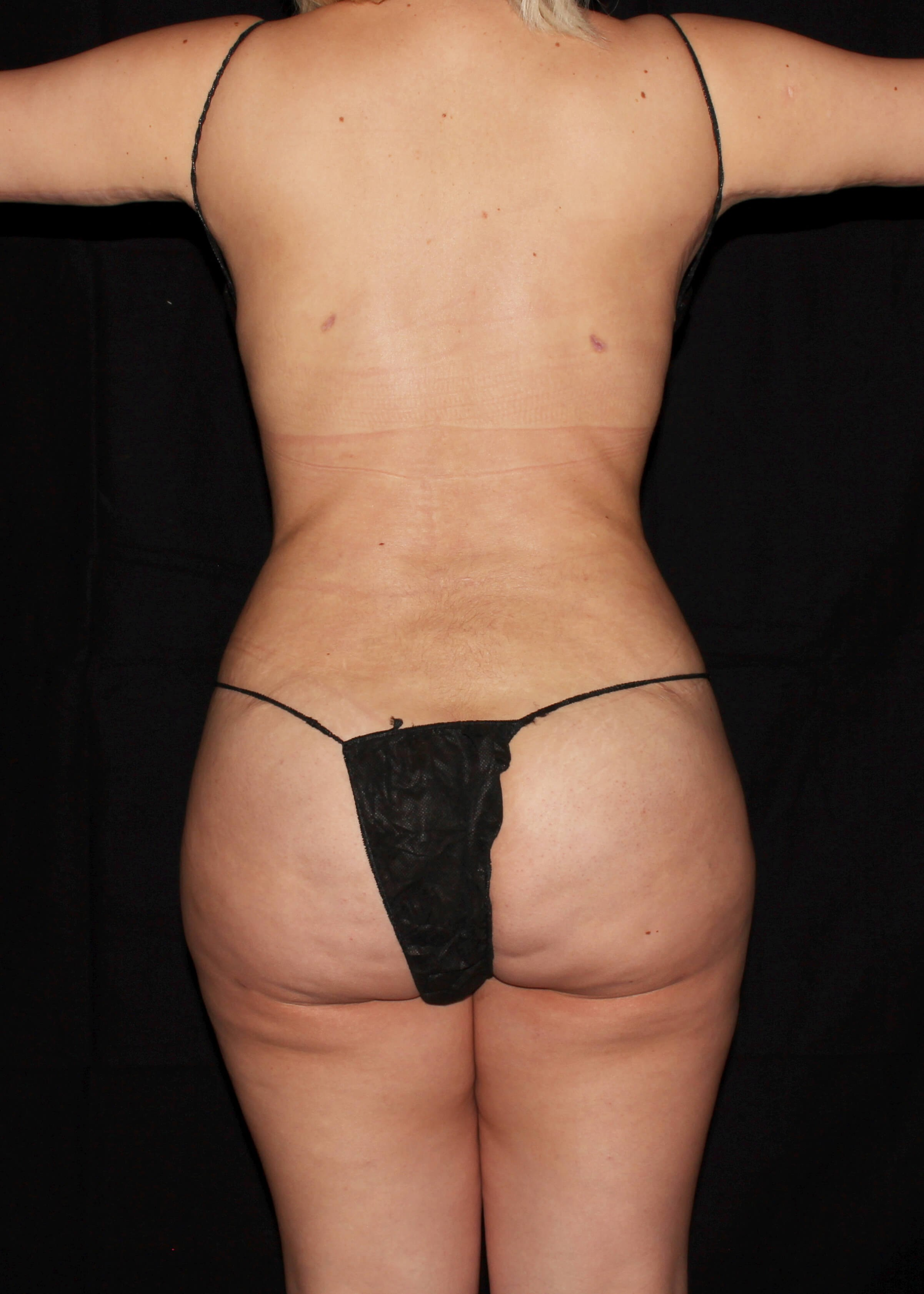 After Liposuction - Back View